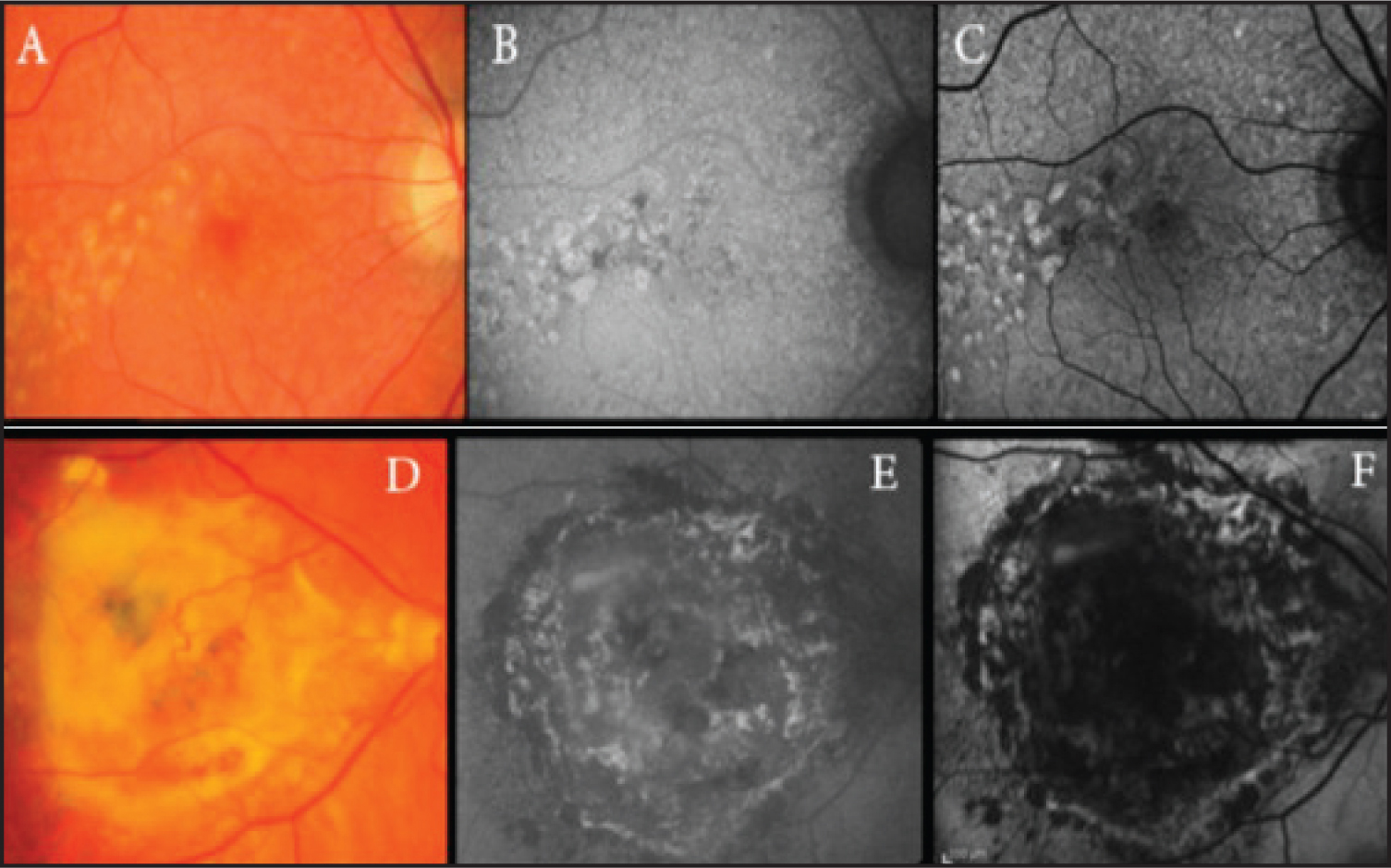 Imaging in age-related macular degeneration (AMD). (A–C) Color fundus, fundus camera (FC) fundus autofluorescence (FAF), and confocal scanning laser ophthalmoscope (cSLO) FAF images of drusen in nonexudative AMD. (D–F) Fundus color, FC FAF, and cSLO FAF images of a fibrovascular lesion in exudative AMD. The foveal aspect of the fibrous tissue lesion shows hyper and hypoautofluorescence with the FC (E) and hypoautofluorescence with the cSLO (F). In the peripheral aspect of the lesion, the fibrous tissue exhibits hyper- and hypoautofluorescence with both the FC and cSLO techniques (E–F).