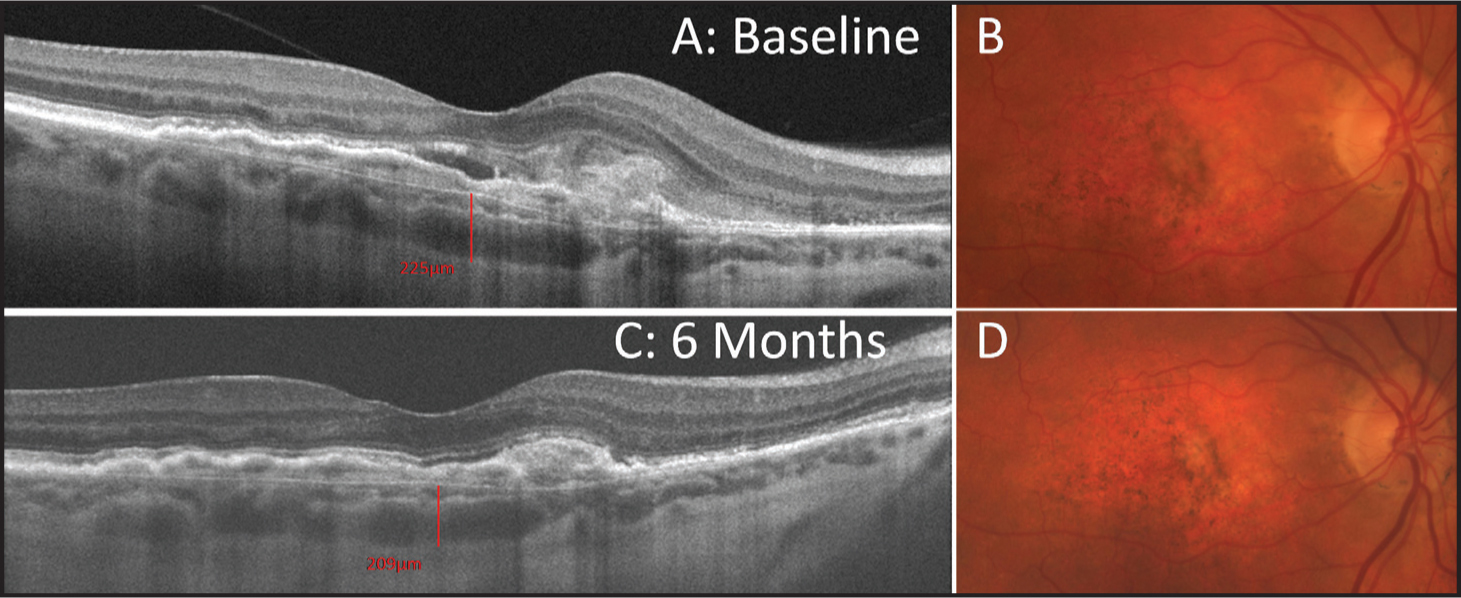 Choroidal thickness in a patient with neovascular AMD. High-definition Cirrus one-line raster scans (A, C) and color fundus photographs (B, D) from a patient with a history of neovascular AMD over 6 months.