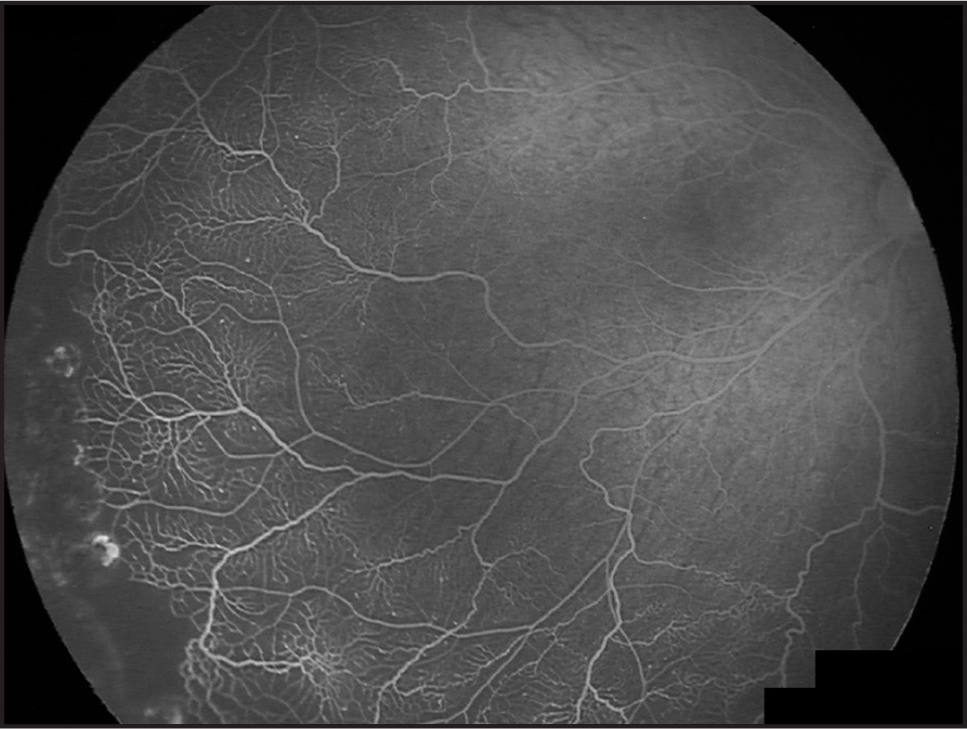 Fluorescein angiogram of the right eye after laser photocoagulation demonstrates laser photocoagulation scars and stable retinal microvascular abnormalities.