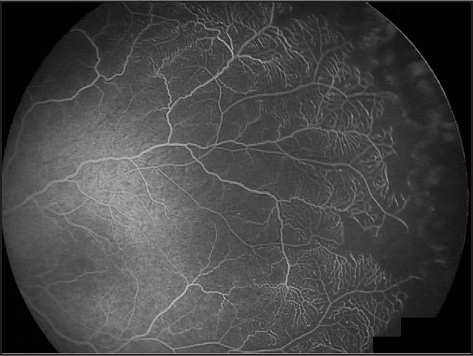 Similar findings are seen in this fluorescein angiogram of the left eye after laser photocoagulation.