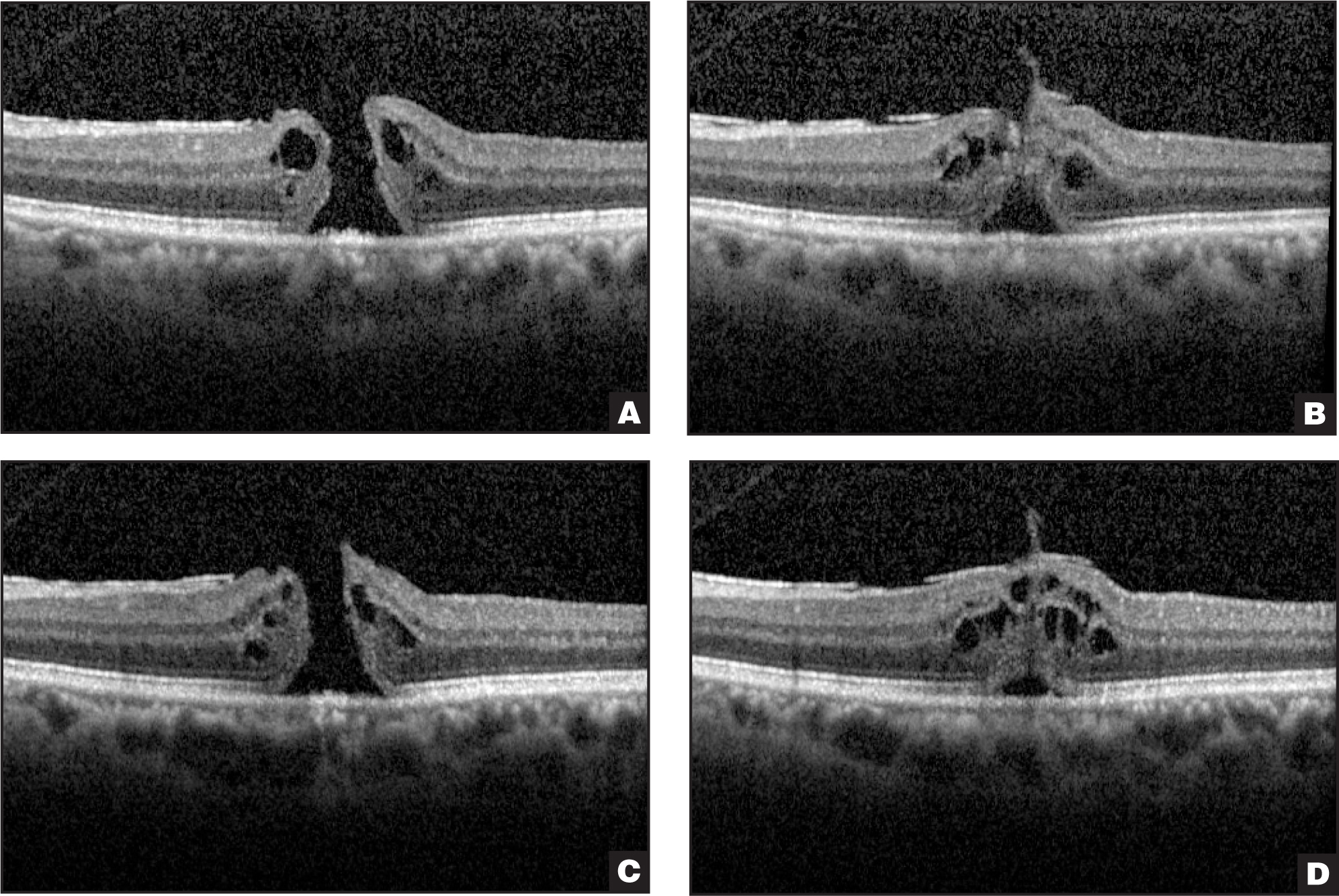 (A) Full-thickness macular hole and epiretinal membrane with (B) paracentral focal adhesion at the time of ocriplasmin injection. (C) At month 2, the full-thickness macular hole and (D) vitreomacular adhesion persisted.
