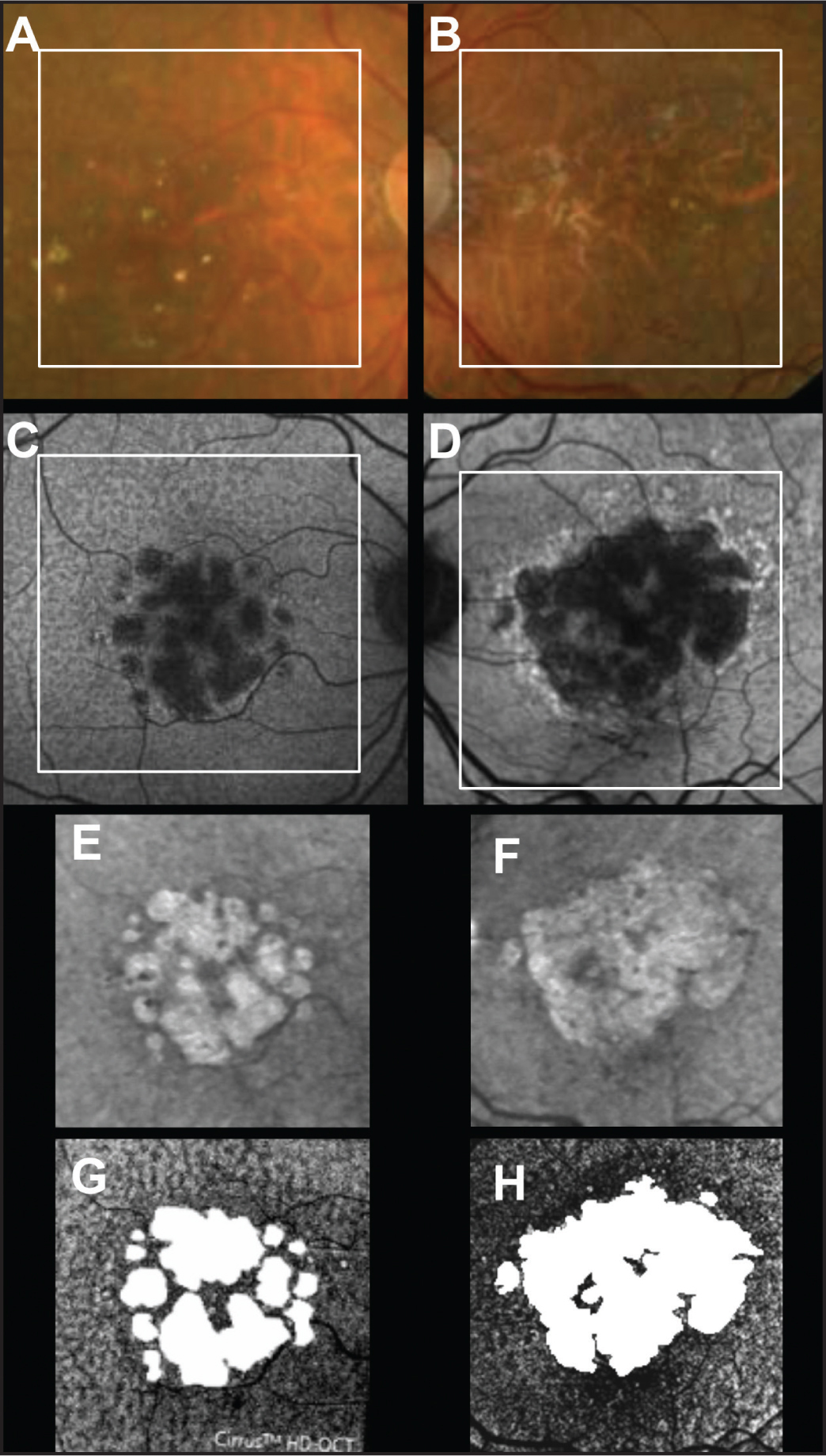 Baseline images of GA from both eyes of an 83-year-old woman with nonexudative age-related macular degeneration and diffuse disruption of the outer retina. (A,B) Color fundus images with a superimposed square depicting the area scanned with spectral-domain optical coherence tomography (SD-OCT) imaging. (C,D) Fundus autofluores-cence images with a superimposed square depicting the area scanned with SD-OCT. (E,F) Sub-RPE slabs. (G,H) En face images derived from the outer retinal slab described in Figure 1 with the superimposed images of GA (white) derived from the corresponding sub-RPE slabs at baseline.