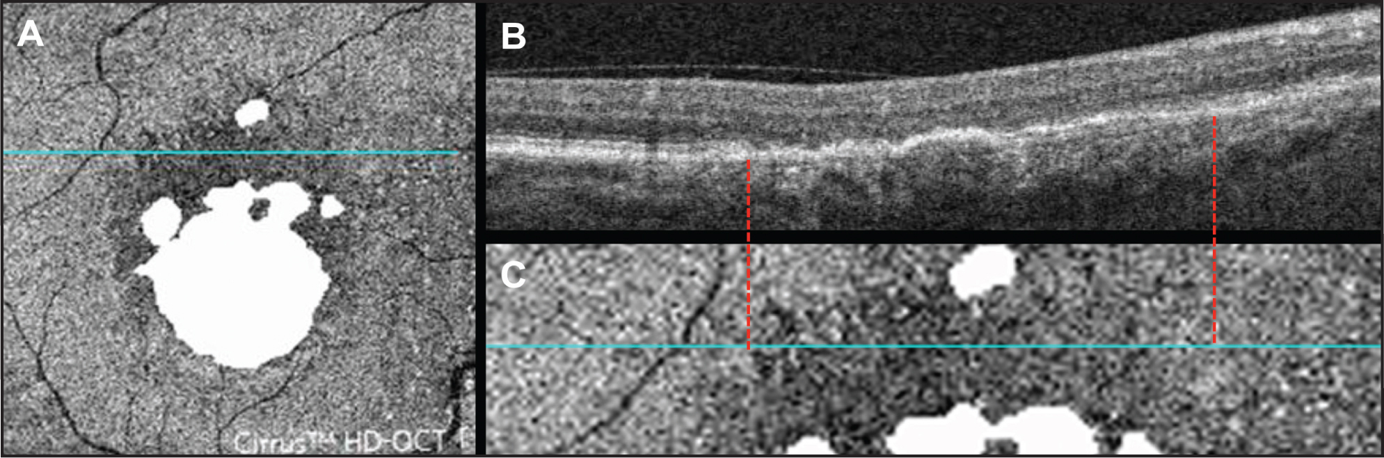 Correlation between individual B-scan and pattern observed on outer retinal en face image. (A) Baseline en face image with superimposed baseline GA (same as Figure 2G) and blue line depicting location of B-scan shown in B. (B) B-scan through dark area above GA corresponding to blue line on en face images in A and C. (C) Magnified portion of en face image with blue line depicting location of B-scan shown in B. Red dashed lines show correlation between dark area on en face image and IS/OS disruption on B-scan.
