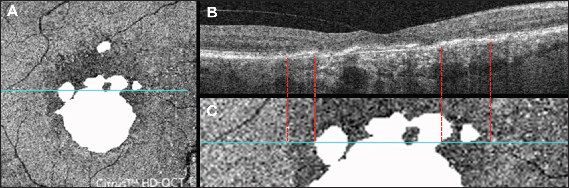 Correlation between individual B-scan and pattern observed on outer retinal en face image. (A) Baseline en face image with superimposed baseline GA (same as Figure 2G) and blue line depicting location of B-scan shown in B. (B) B-scan through dark area and GA corresponding to blue line on en face images in A and C. (C) Magnified portion of en face image with blue line depicting location of B-scan shown in B. Red dashed lines show correlation between dark area on en face image and IS/OS disruption on B-scan and between GA and outer retinal atrophy and increased choroidal reflectivity seen on B-scan.