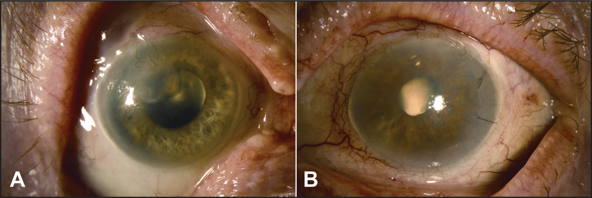 Two-month follow-up. (A) The corneal ulcer in the right eye has completely healed into a vascularized paracentral scar. (B) The left eye is quiet and void of any signs of inflammation or infection. Mild corneal haze and thickening persist.