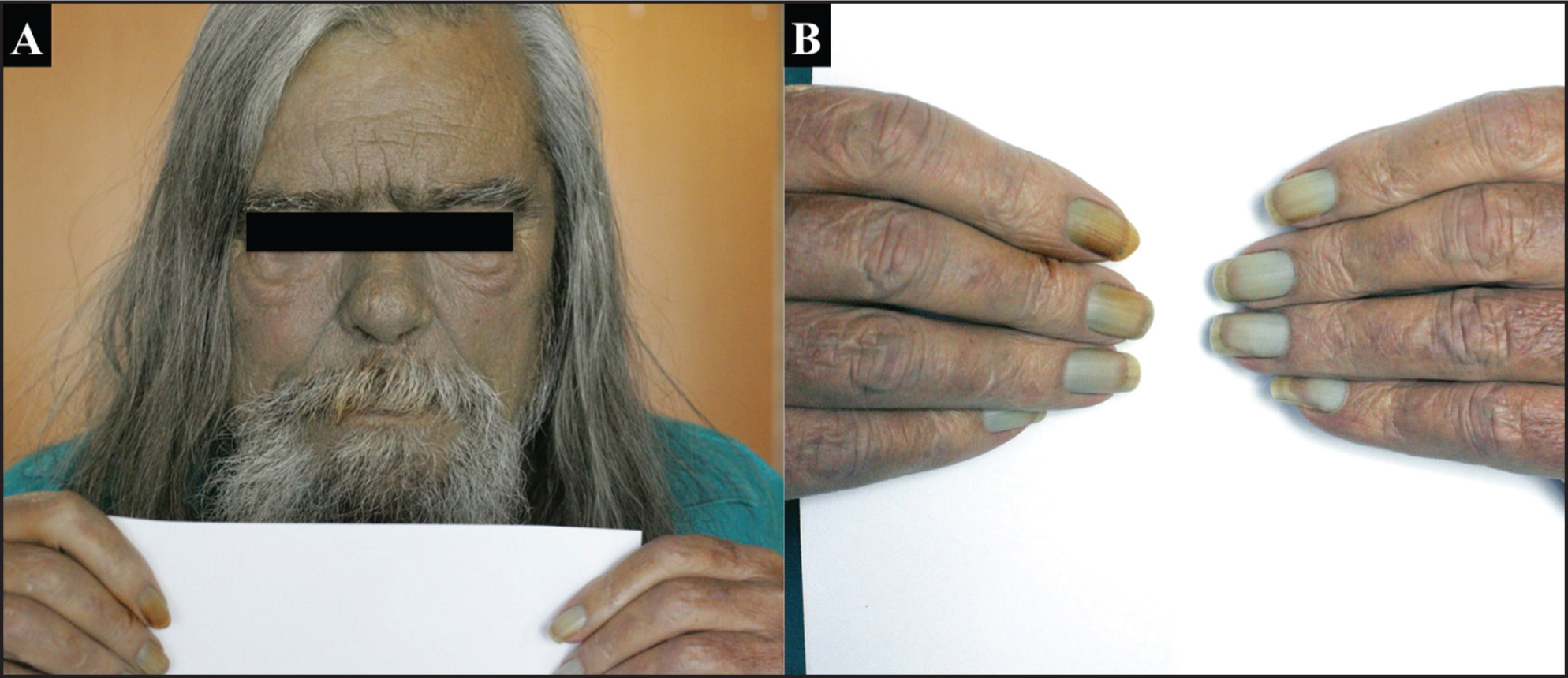 "Skin findings in argyrosis. Clinical photographs demonstrating a slate gray tinted patient resembling a ""blue man"" (A) and bluish discoloration of the nail beds (B)."