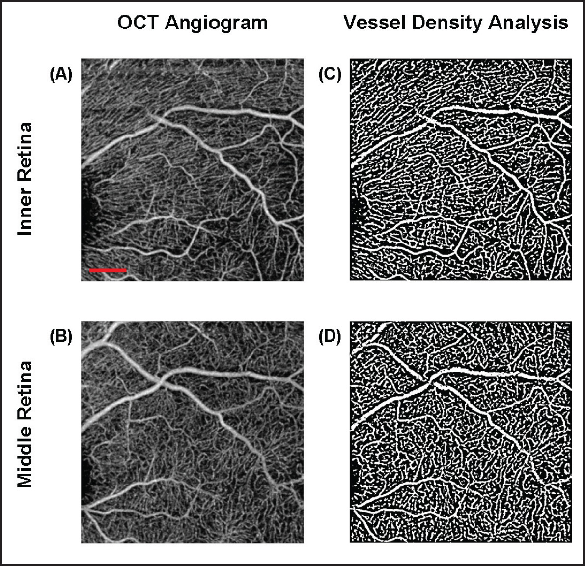 OCT angiogram and vessel density analysis of a 3 × 3 mm2 area in the nasal macular region of a healthy subject. En face representation of the retinal vessels in the (A) inner retinal layer show linear radiating patterns of capillaries emanating from the disc that appear to run a parallel course to ganglion nerve axons. Note that part of the major vessel in the upper left of the panel is deeper to the retina as it emerges from the nerve and only shows up clearly in the middle retinal layers in that region. (B) En face representation of the retinal vessels in the middle retinal layer do not demonstrate as strong a radiating pattern. (C,D) Contrast enhanced images of the respective retinal regions in (A) and (B). (C) Vessel density analysis of the inner retina showed an average total density of 31.59% ± 1.40%. (D) Vessel density analysis of the middle retina showed an average total density of 31.47% ± 1.62%. The scale bar in (A) shows a distance of 500 µm. This scale applies to (A–D).