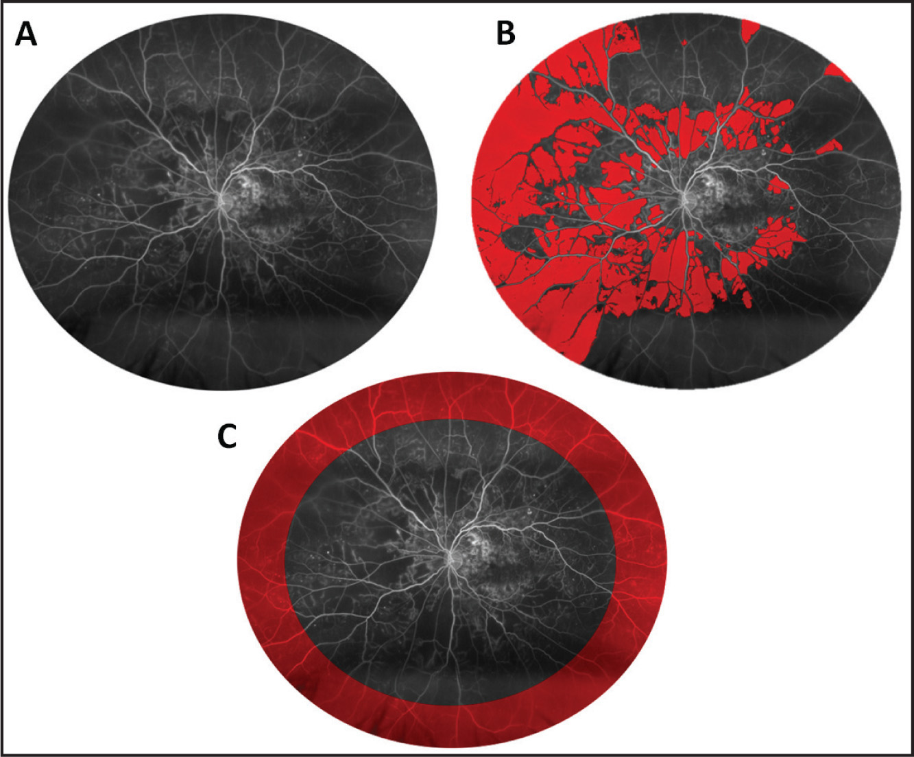 Clinical example quantifying retinal nonperfusion in a patient with diabetic retinopathy. (A) Standard field defined to quantify nonperfusion. (B) Selection of area of retinal nonperfusion (red). (C) Selection of peripheral retina (red).