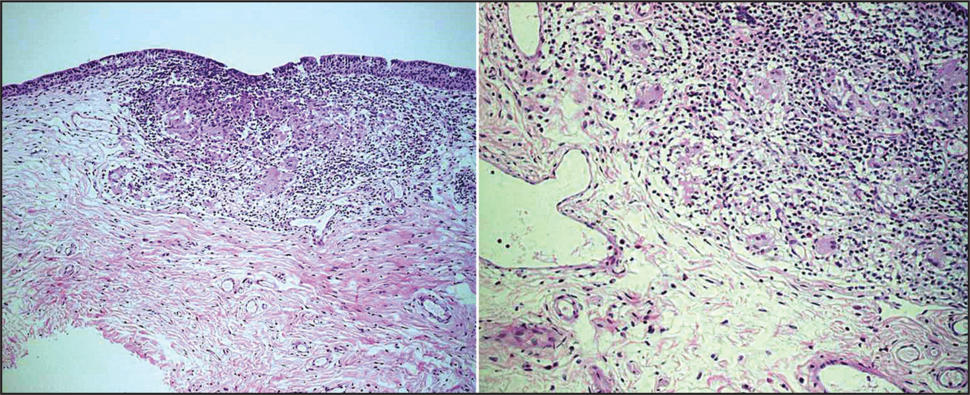 Conjunctival biopsy revealing non-caseating granulomas with associated lymphocytes and epithelioid cells (hematoxylin–eosin stain, original magnification ×10 [left] and ×20 [right]).