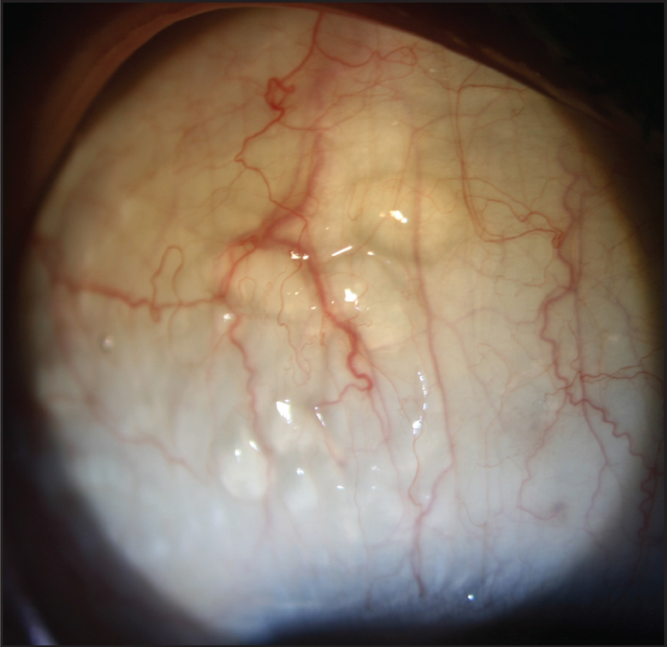 Transparent conjunctival lymphatic vessels in the right eye, which were previously filled with blood.