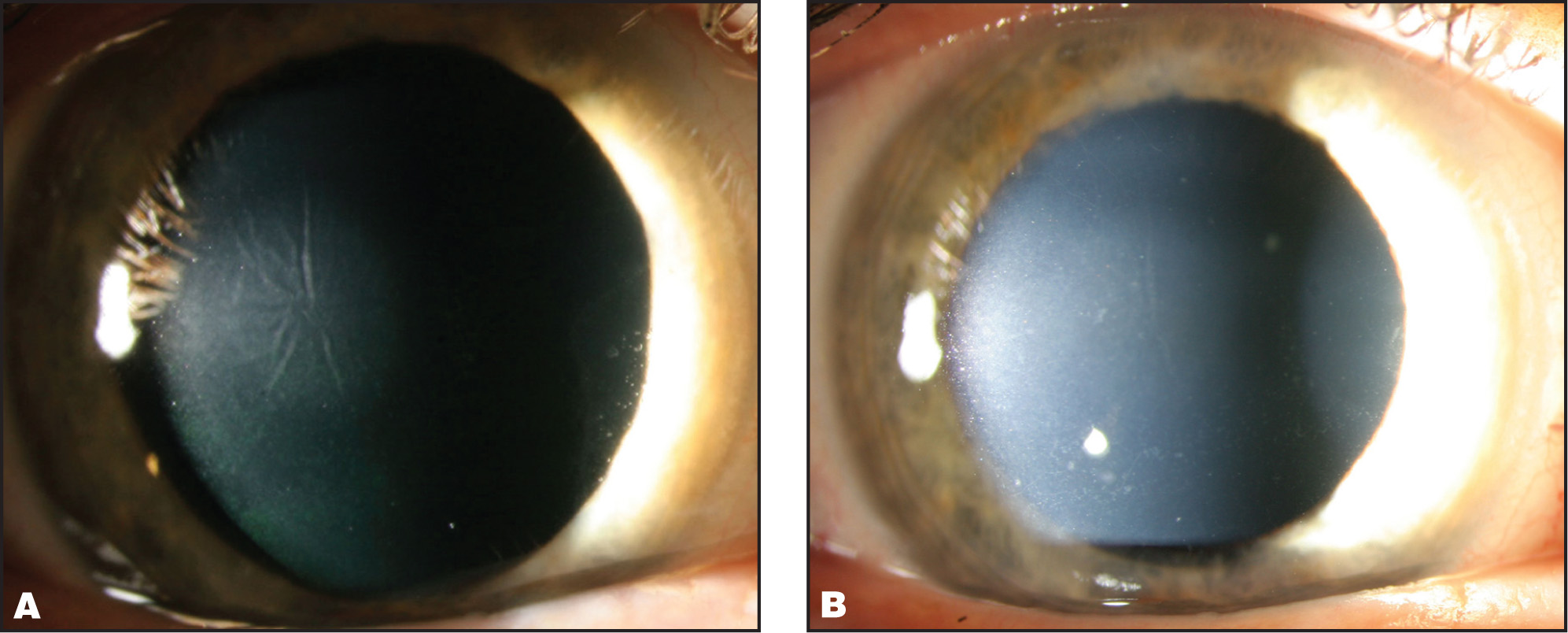 (A) Slit-lamp examination 1 month after surgery revealing central interface opacity, multidirectional striae, and stromal thinning. These are the classic findings of central toxic keratopathy. (B) Four months after surgery, showing only mild resolving residual central haze.