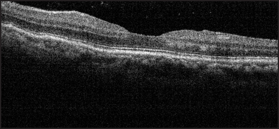 Spectral-domain OCT of left eye demonstrating a normal study pattern with no intraretinal edema or retinal folds.