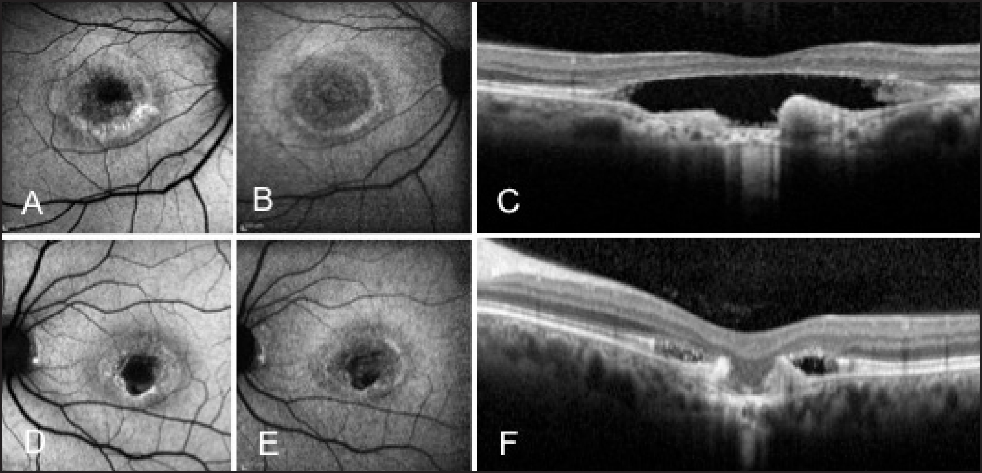 Short-wavelength (A, D) and near-infrared fundus autofluorescence (B, E) of the right and left eyes, showing bilateral vitelliform macular dystrophy with accumulation of yellowish material and atrophic changes. SD-OCT (C, F) showing focal choroidal excavation in both eyes that corresponded to the center of the macular atrophy.