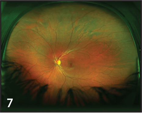 Ultra-widefield image demonstrating lash artifact inferiorly, obstructing the view of inferior lattice, which had been detected in clinical examination.