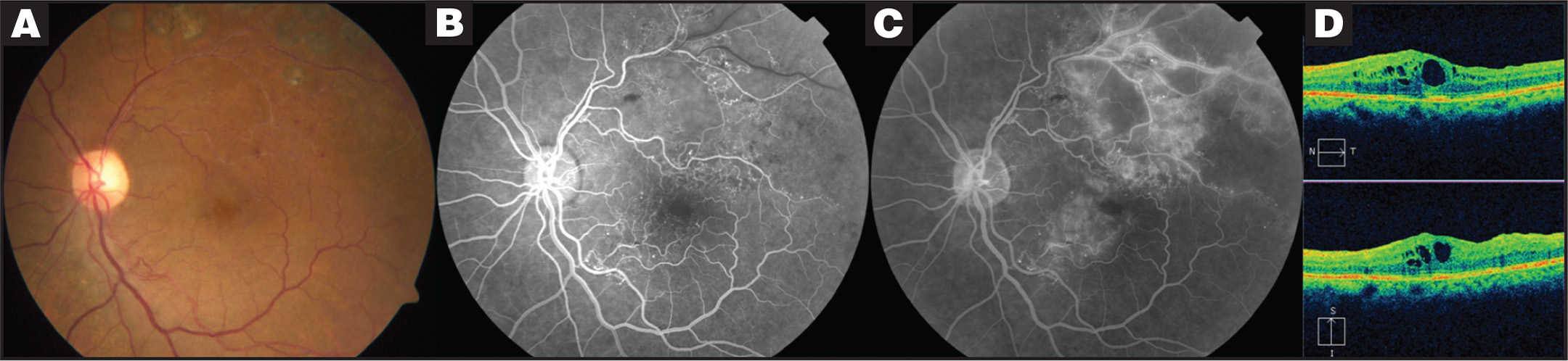 Imaging Areas Of Retinal Nonperfusion In Ischemic Branch