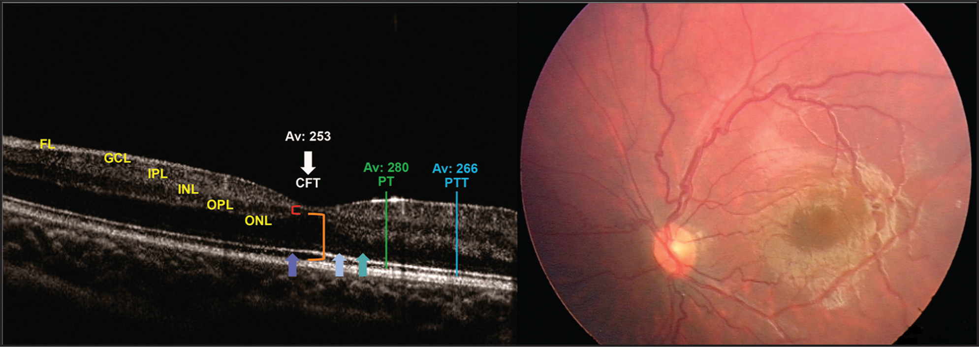 Example of a case with foveal contour development (13 eyes in seven patients). OCT and RetCam (Clarity Medical Systems, Pleasanton, CA) images of the left eye of patient 5 at 28 months after Avastin (bevacizumab; Genentech, South San Francisco, CA) treatment (birth weight: 720 g; gestational age: 24 weeks; zone I ROP). All retinal layers were present. Persistence of retinal layers (inner nuclear, inner plexiform) over the fovea (red bracket). Signs of macular development: outer segment elongation, inner segment/outer segment and external limiting membrane presence (blue arrows), and thickening of the outer nuclear layer at the fovea (orange bracket).