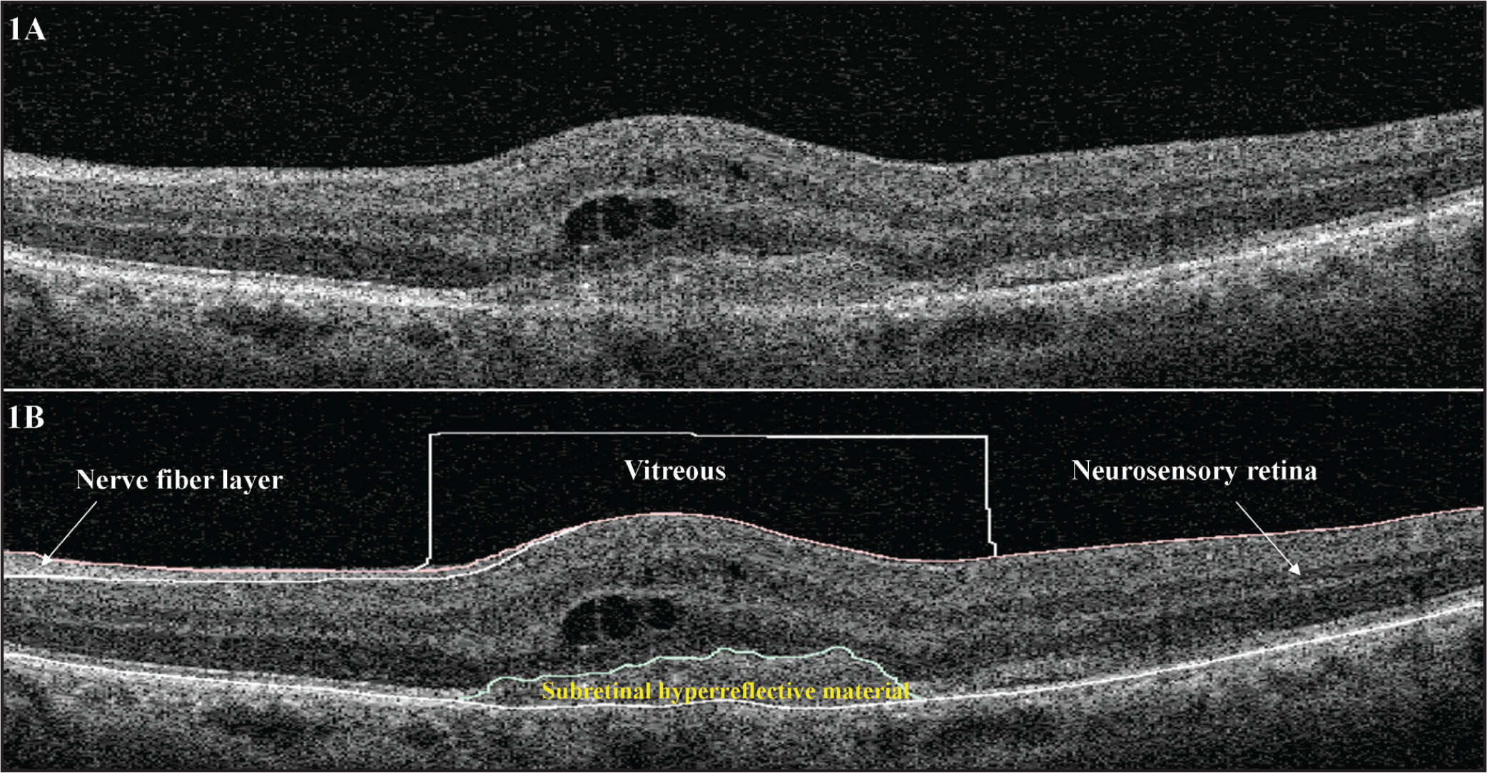 OCT B-scan of the left eye in a patient with type 2 choroidal neovascular membrane. (A) Original unsegmented OCT B-scan image. (B) OCT B-scan image following manual segmentation of the vitreous, nerve fiber layer, and subretinal hyperreflective material.