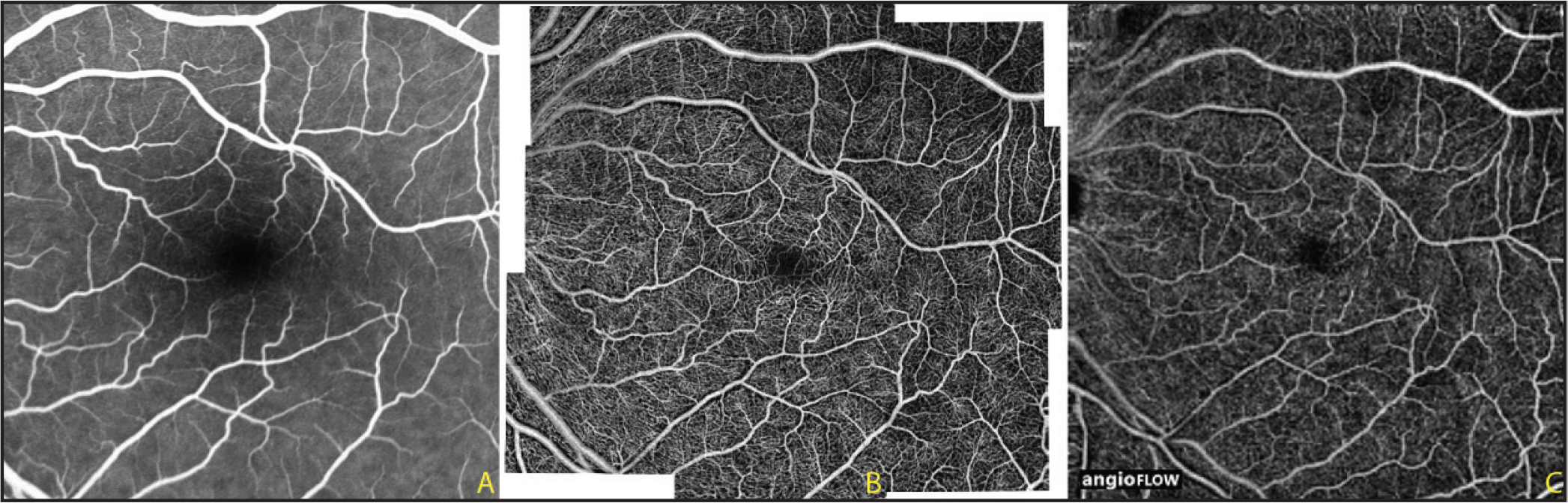 Case 1. The left eye of a 56-year-old man with a normal retina. (A) Fluorescein angiography appears normal, showing the larger retinal vessels. (B) The wide-field montage OCT angiography (OCTA) image clearly delineates the normal retinal vasculature including the smaller capillaries. (C) A single-scan 8 × 8–mm OCTA image shows the larger retinal vessels and some of the smaller capillaries but detailed visualization of the capillary plexus is not feasible.