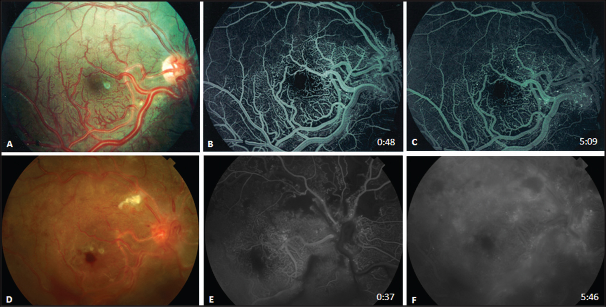 (A) Baseline color fundus photograph demonstrating grossly dilated vessels with abnormal capillary network consistent with arteriovenous malformation of the retina. (B) Baseline fluorescein angiography (early phase) demonstrating full perfusion of the posterior pole. (C) Fluorescein angiography (late phase) demonstrating the absence of leakage. (D) Fundus photograph demonstrating similar arteriovenous malformations now with vitreous and intraretinal hemorrhages, capillary drop-out, and cotton wool spots. (E) Fluorescein angiography (early phase) demonstrating capillary drop-out and macular leakage. (F) Fluorescein angiography (late phase) demonstrating diffuse late leakage.