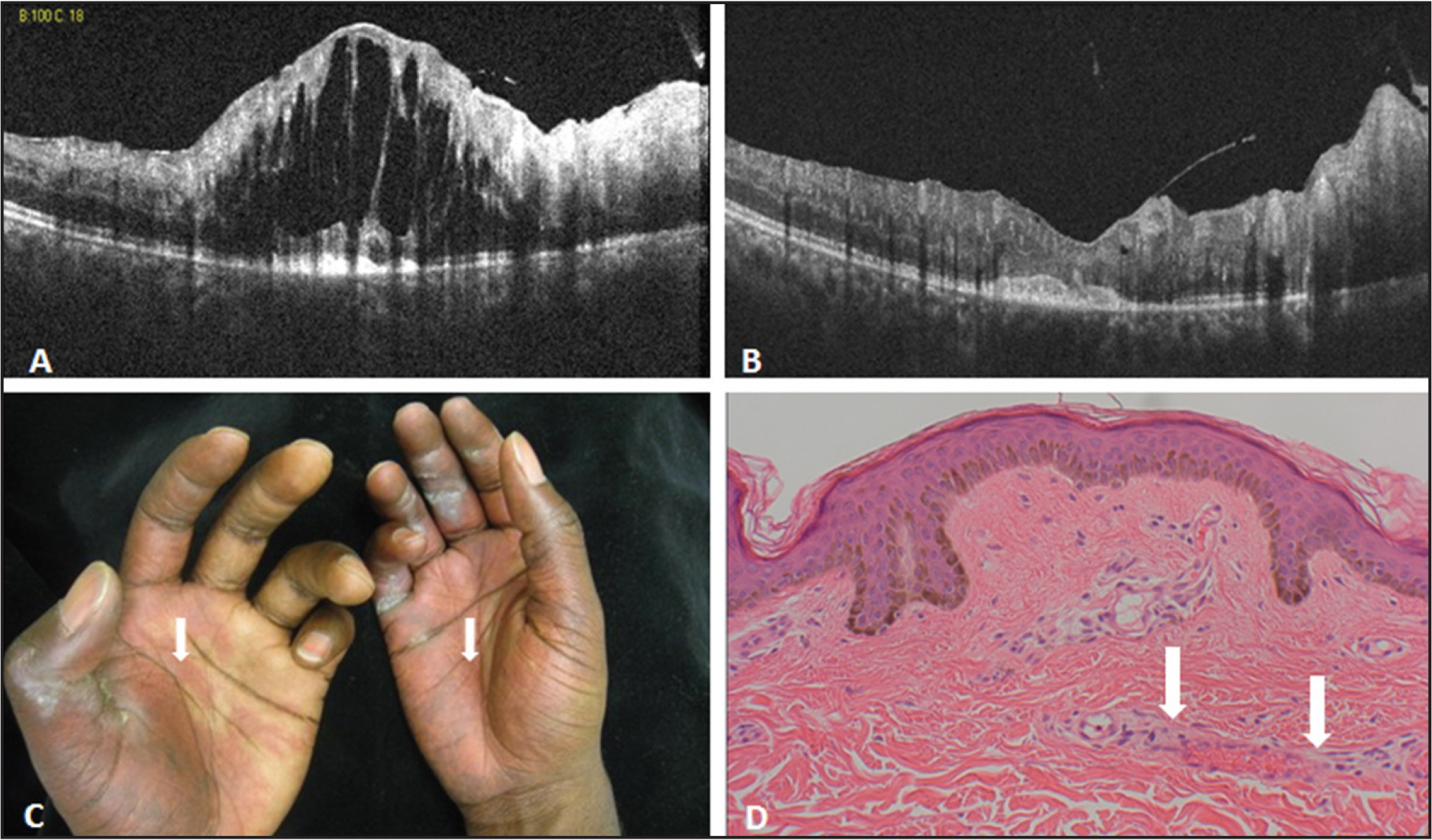 (A) Spectral-domain optical coherence tomography (SD-OCT) showing cystoid macular changes. (B) SD-OCT 2 weeks after injection of bevacizumab showing near-complete resolution of the intraretinal fluid. (C) Violaceous rash of extremities. (D) Hematoxylin and eosin (200×) punch biopsy of involved skin showing rare congested vessels (arrow).