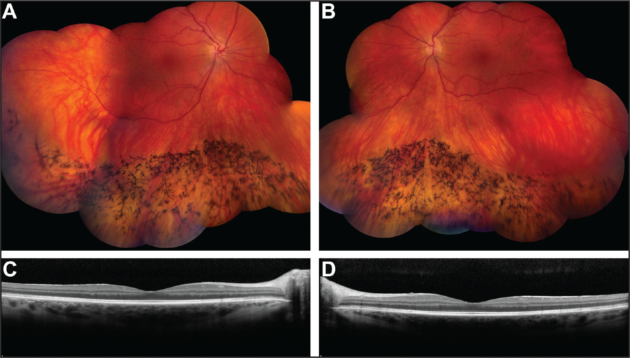 Color montage of the right (A) and left (B) eyes showing bone spicule pigmentary changes in the inferior periphery. The right eye is slightly worse than the left. Spectral-domain optical coherence tomography horizontal line scans through the fovea of the right (C) and the left (D) eyes showing normal foveal profiles bilaterally.