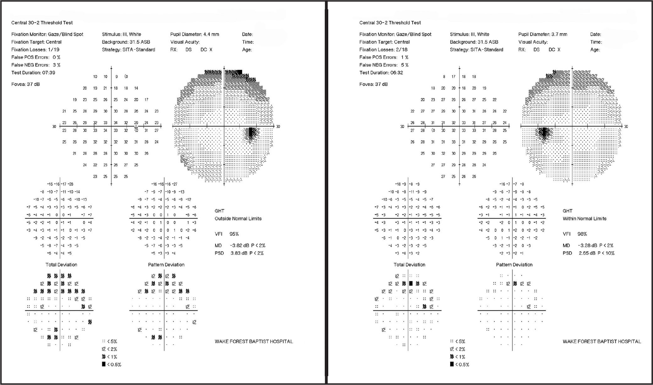 Humphrey visual field tests of the right and left eyes show superior visual field defects.
