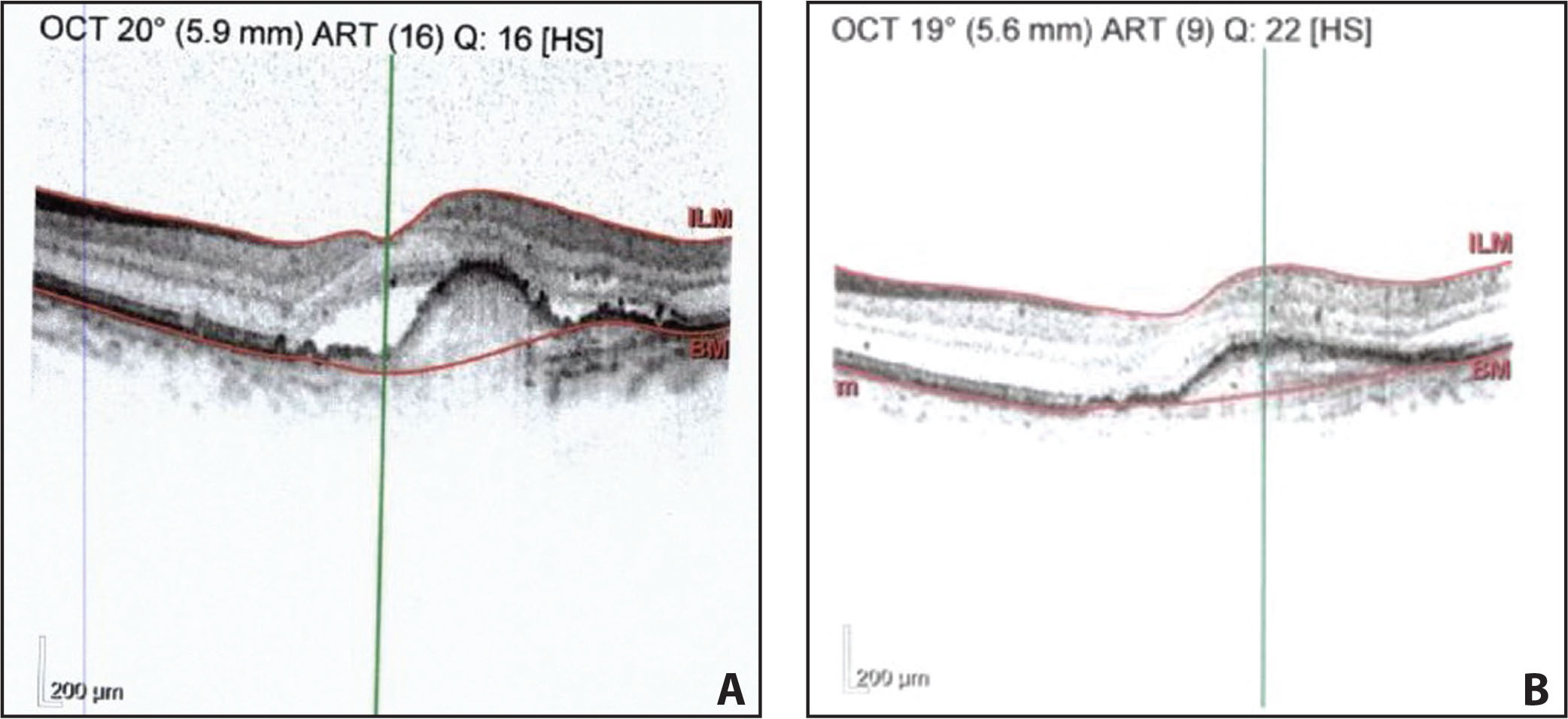 Optical coherence tomography resolution of subretinal fluid in patient B before (A) and after (B) treatment with aflibercept.