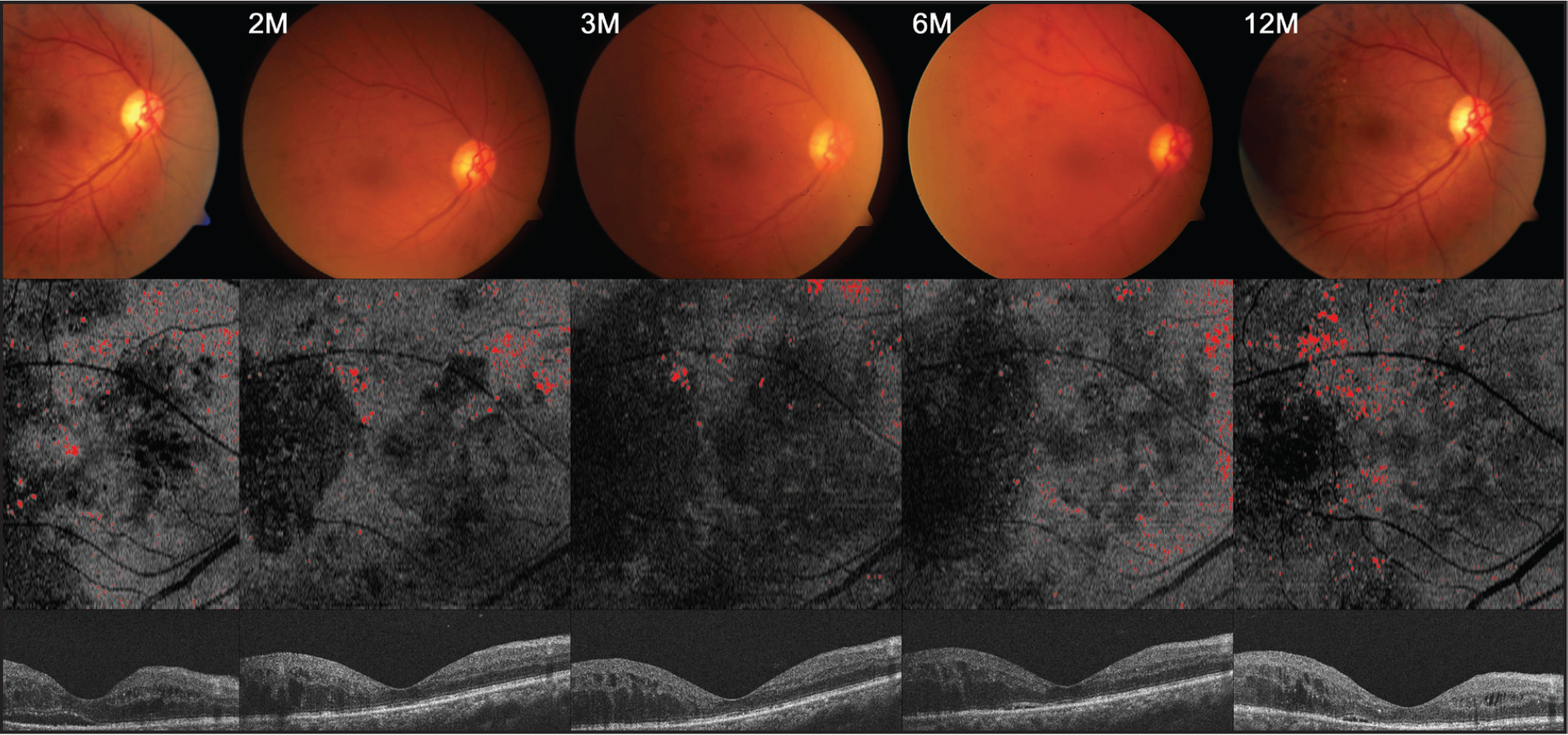 Serial changes in en face outer nuclear layer (ONL) slab hard exudates (HEs) after intravitreal ranibizumab treatment: a 59-year-old male patient with serous retinal detachment. Color fundus images (top), en face ONL slab images indicated with HEs area in red (middle), and cross-sectional images of central subfield corresponding to the en face image (bottom). The area fraction ONL HEs in en face ONL slab images are 1.50% at month 1, 1.49% at month 2, 1.35% at month 3, 1.66% at month 6, and 1.74% at month 12.