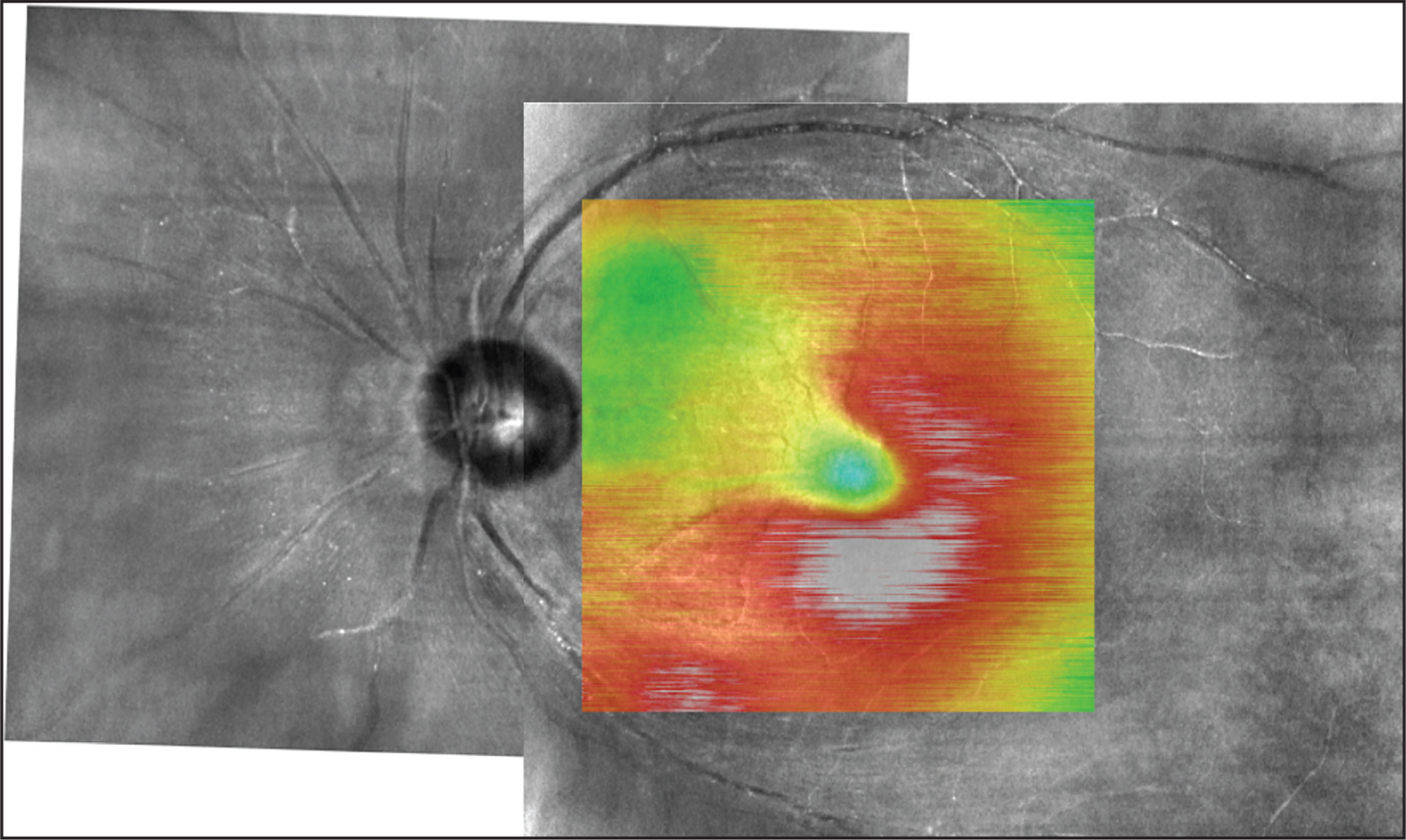 A 6 mm × 6 mm macular thickness map registered on a laser scanning ophthalmoscope fundus image demonstrating macular edema in the areas of whitening seen on clinical exam and color fundus photography. The area of arterial sparing superonasally does not have edema.