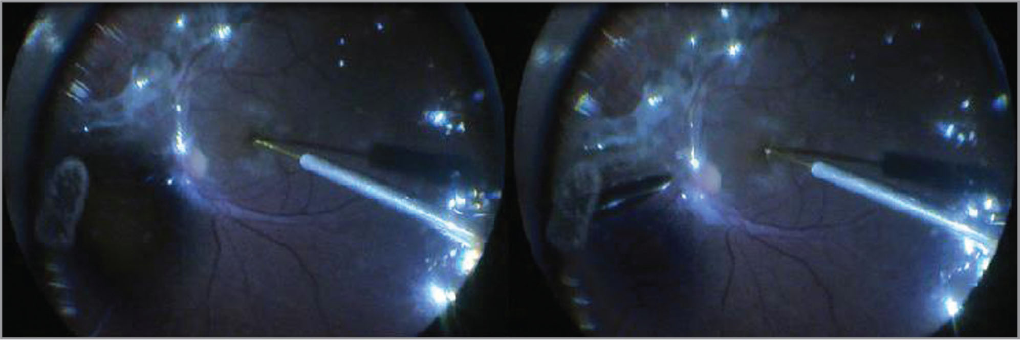 During the fluid-air exchange, 39-gauge cannula was placed just over the macular hole to drain submacular fluid.