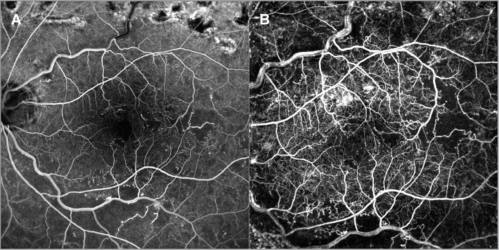 This patient study (Patient 5) was obtained 7 months after an excellent response to intravitreal bevacizumab in the left eye. He was diagnosed with central retinal vein occlusion 62 months prior to the Retinal Functional Imager (RFI) scan and had a total of three intravitreal triamcinolone and four intravitreal bevacizumab injections. His vision at the time of the RFI scan was 20/20. The RFI image (A) closely parallels the appearance of the fluorescein angiogram (B) in terms of vascular resolution and depicting nonperfusion. The flow velocities, though diminished from the controls, were not as depressed as in other cases with poor visual acuity as demonstrated in Table 3.