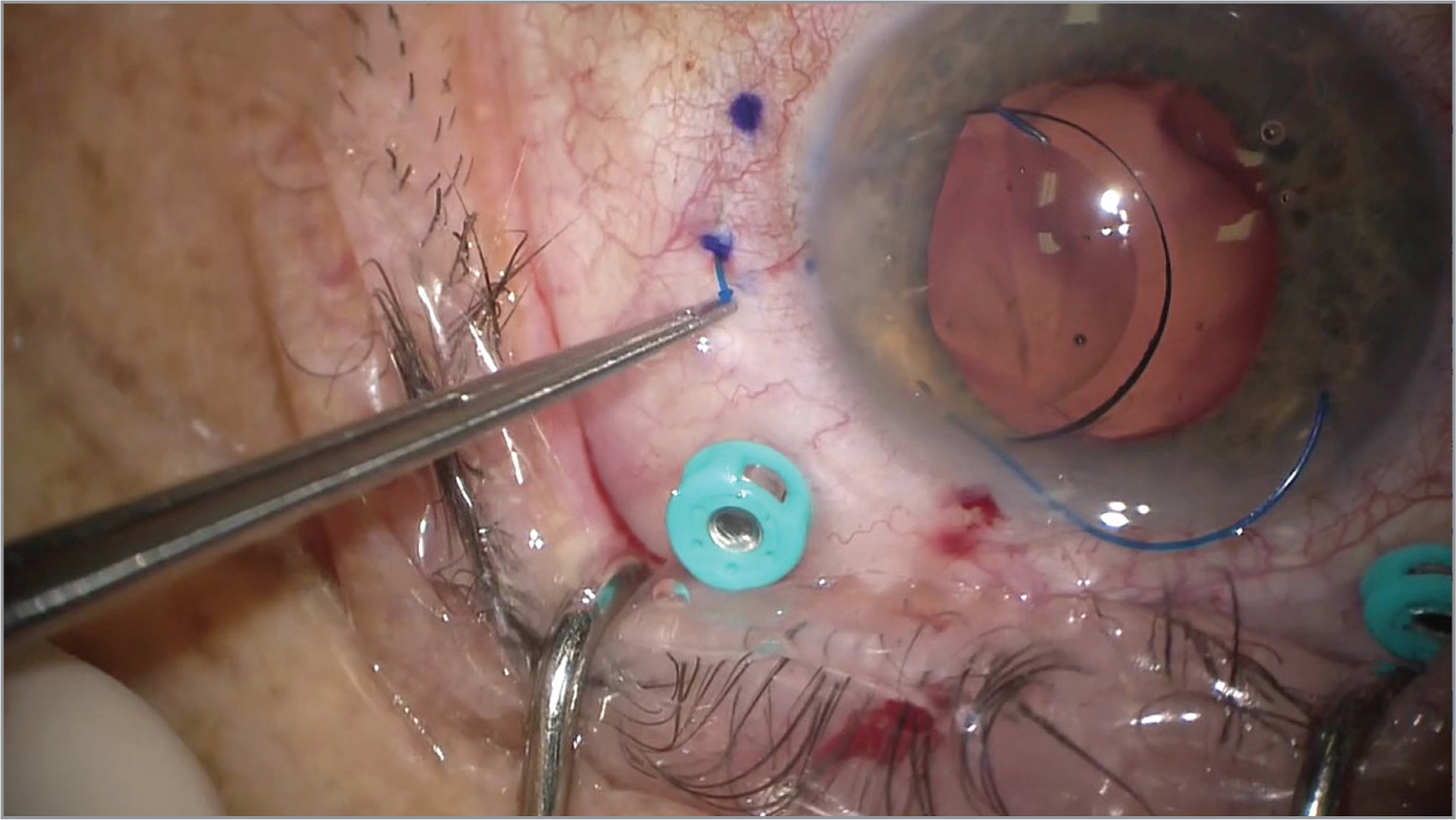 The tip of the leading haptic is externalized and thermally deformed before the intrascleral fixation of the trailing haptic, a step that increases the safety of this surgical modification.