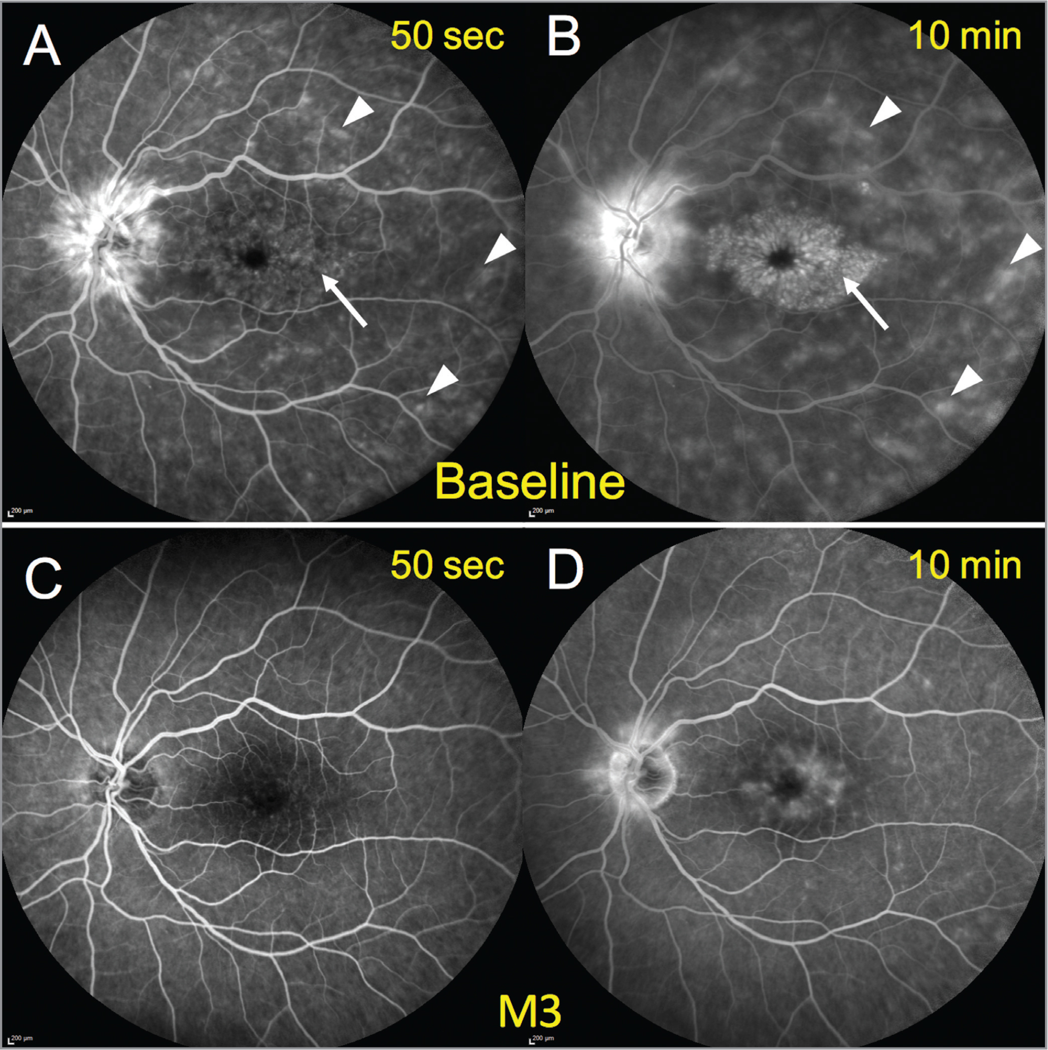 Restoration of the outer and inner blood-retinal barrier on fluorescein angiography in a 76-year-old woman treated by oral eplerenone and topical dexamethasone drops 2 years after complicated cataract extraction. (A, B) At presentation, extensive outer blood-retinal barrier rupture manifested as diffuse hyperfluorescent spots (arrowheads), and inner blood-retinal barrier rupture at the macular manifested as fine telangiectasia in the early frames (A) and progressive filling of the cystoid cavities in the late frame (B) (arrows). An intense late diffusion at the disc indicated papillitis (B), a frequent finding in Irvine-Gass syndrome. (C, D) Three months after treatment initiation, all inflammatory signs had markedly declined, with fewer hyperfluorescent spots, a weaker diffusion at the macula, and a milder fluorescence at the disc still visible on the late frame (D). M = month.