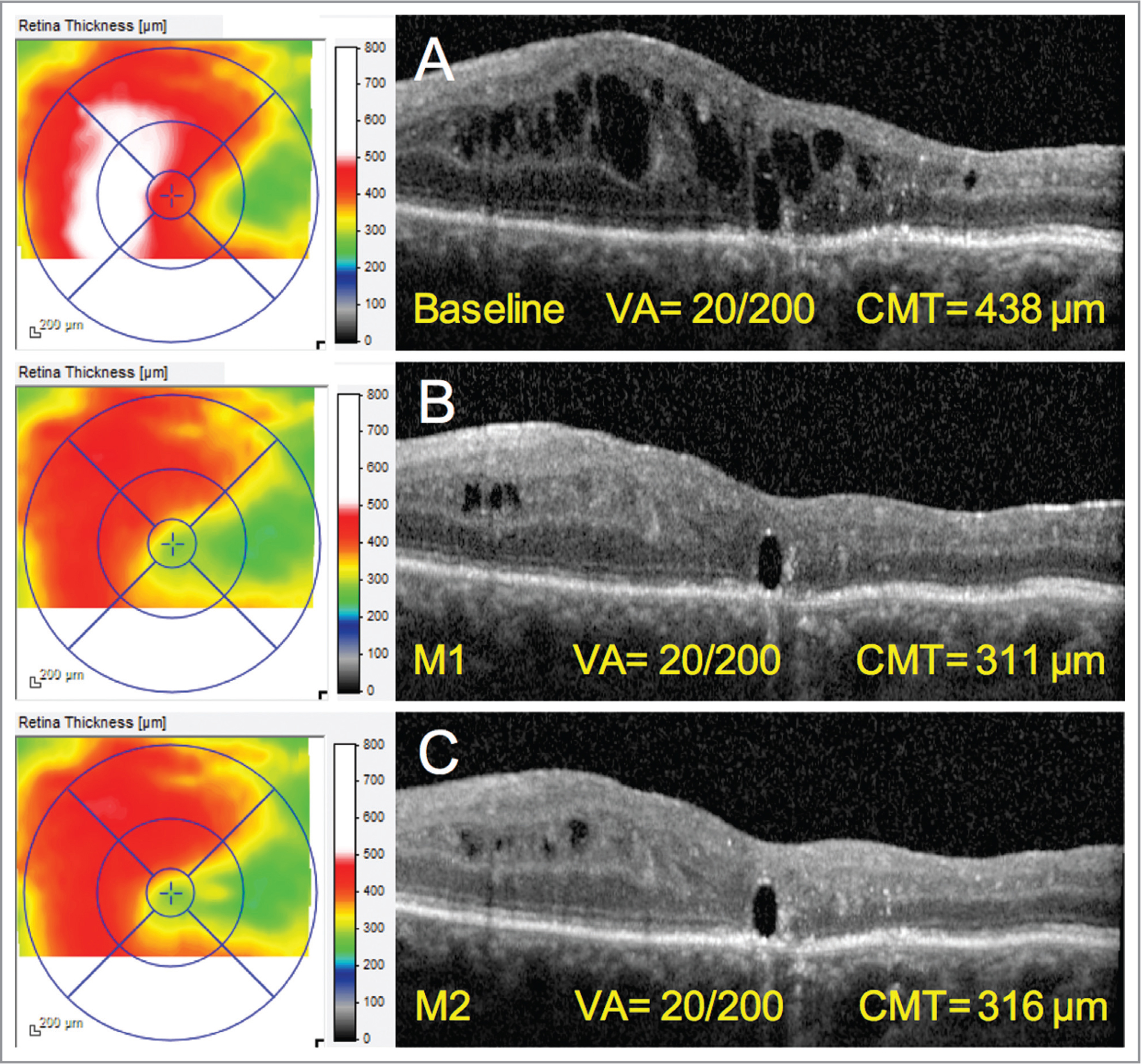 Anatomical improvement in a 69-year-old woman presenting with long-standing macular edema treated by oral eplerenone and topical dexamethasone 2 years after pars plana vitrectomy and silicone-oil tamponade for rhegmatogenous retinal detachment with proliferative vitreoretinopathy. (A) At presentation. (B–C) Regression of cystoid edema cavities and decrease in central macular thickness after 1 month and 2 months since initiation of treatment with oral epleronone (50 mg/day) and topical dexamethasone (four times/day). M = month; VA = visual acuity; CMT = central macular thickness.