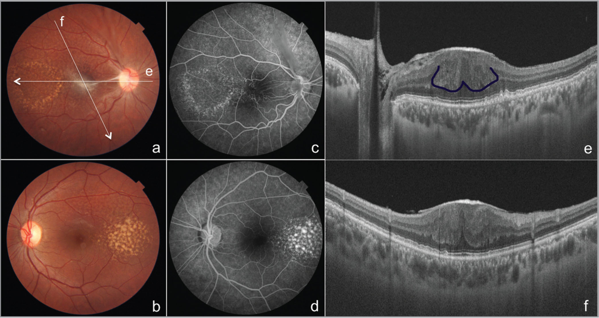 """Color fundus photographs of right (A) and left eyes (B) show reticular pseudodrusen in the temporal macula. Additionally, the right eye shows epiretinal membrane (ERM) extending from the optic disc to the macula. White arrows marked """"e"""" and """"f"""" show the position of optical coherence tomography (OCT) scans in (E) and (F). Fluorescein angiograms show drusen in both eyes (C, D) and vascular tortuosity beneath the ERM in the right eye. Swept-source OCT (E) shows ERM, drusen, and omega-shaped localized thickening of the retina that is bounded posteriorly by the outer plexiform layer (Omega sign is marked by blue line). Omega sign is more prominent in the oblique scan (F)."""