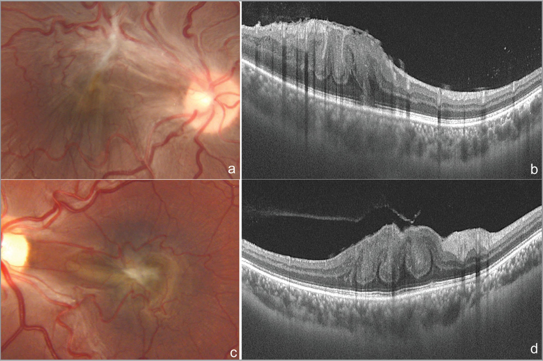 Color photographs of Patients 3 (A) and 4 (C) showing typical combined hamartoma of retina and retinal pigment epithelium lesion. Swept-source optical coherence tomography scans through the fovea of Patients 3 (B) and 4 (D) show Omega sign.