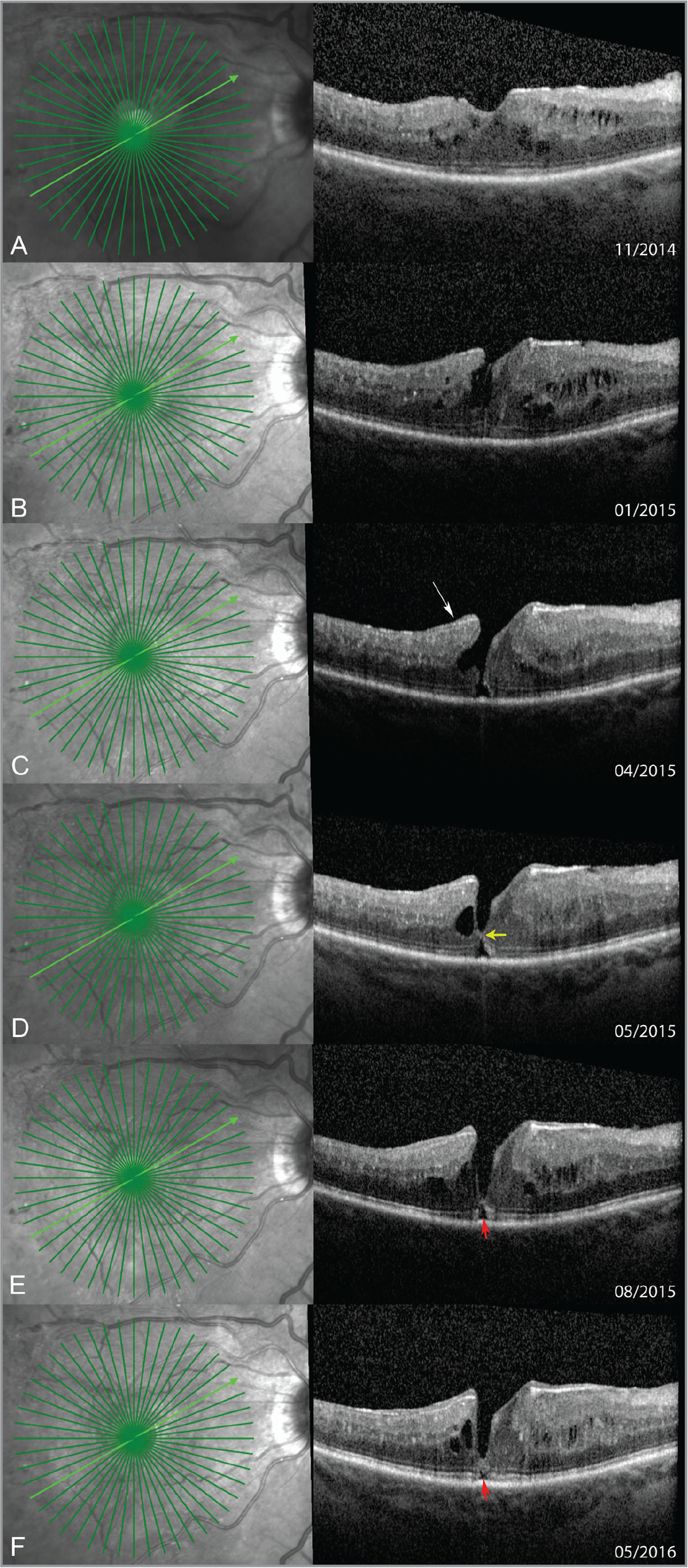 Sequential radial optical coherence tomography (OCT) scans in 61-year-old female with a tractional retinal detachment following repair and epiretinal membrane (ERM) peel. Two months following vitrectomy, foveal contour was intact with mild cystic edema and an ERM (A). Four months postoperatively, a lamellar hole developed (B), which progressed to a full-thickness macular hole (FTMH) 7 months following vitrectomy. A narrow base with wider separation in the inner retina was consistent with lamellar macular hole formation before the FTMH. Associated lamellar hole epiretinal proliferation was visualized as a hyporeflective layer (white arrow; C). During a 2-week period, there was spontaneous closure with the appearance of bridging tissue on OCT at the level of the outer nuclear layer (yellow arrow; D). There was progressive restoration of the outer retinal bands with a small residual defect in the ellipsoid zone (red arrow; E, F).