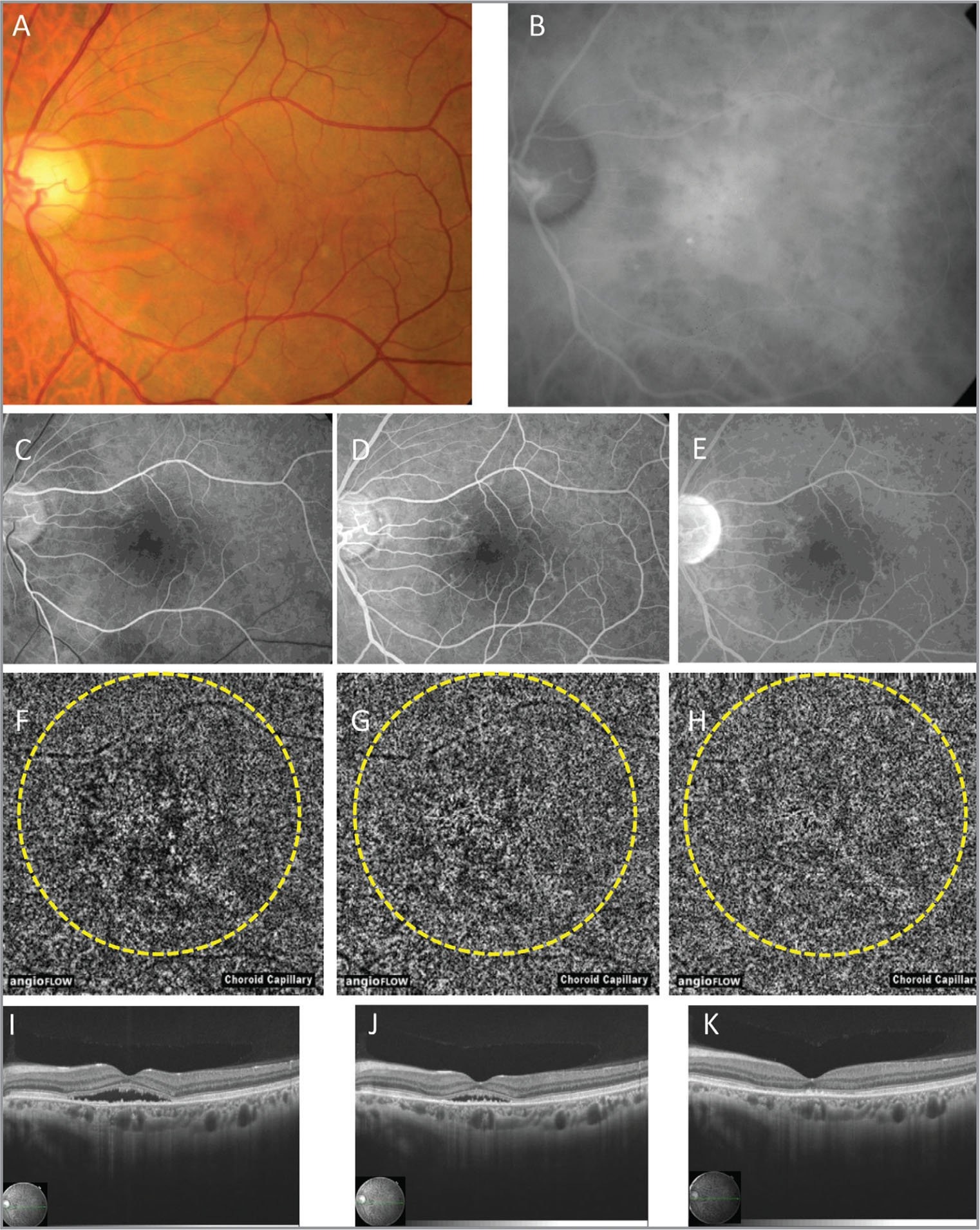 A;Multimodal imaging of the left eye of Case 6. (A) Color fundus photograph. (B) Middle phase of indocyanine green angiography. (C–E) Fluorescein angiography in the early to middle phase (C), middle phase (D), and late phase (E). (F–H) Optical coherence tomography angiography (OCTA) before photodynamic therapy (PDT) (F), 1 week after PDT (G), and 1 month after PDT (H). The PDT spot area is encircled by yellow dots. Before PDT, focal high-intensity lesion indicating abnormal choroidal vessels and flow void lesion at the choriocapillaris layer are observed (F). These findings decrease progressively at 1 week and 1 month after PDT (G, H). (I–K) OCT before PDT (I), 1 week after PDT (J), and 1 month after PDT (K).