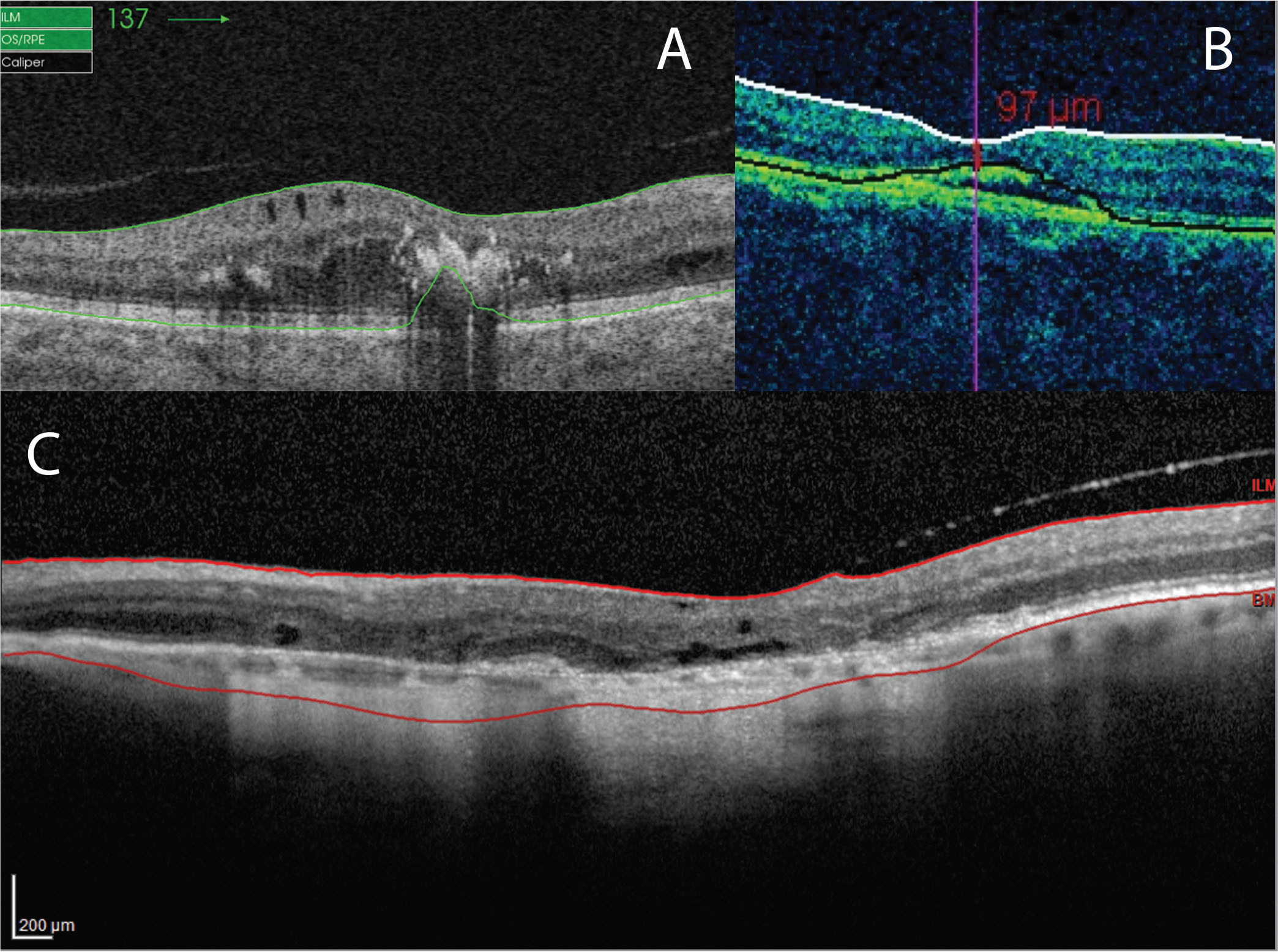 (A) Segmentation error with the Triton device due to retinal hard exudate in an eye with diabetic macular edema. (B) Segmentation error with the Cirrus device due to pigment epithelium detachment in an eye with neovascular age-related macular degeneration (nAMD). (C) Segmentation error with the Spectralis device due to geographic atrophy in an eye with nAMD.