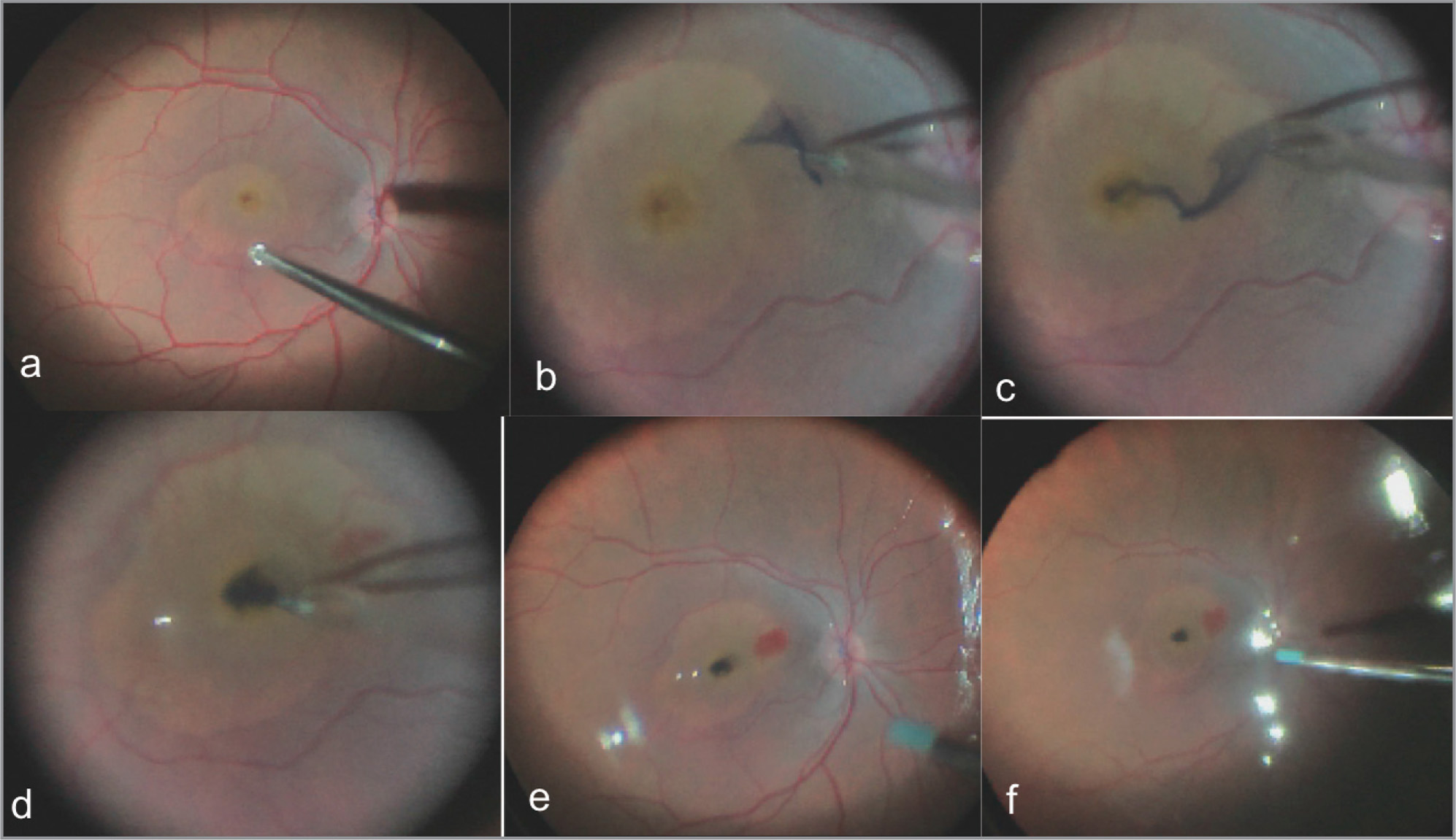 A modified perfluoro-n-octane (PFO)-assisted free flap internal limiting membrane (ILM) transplantation technique (Case 3). (A) Pre-peeled ILM edge following Brilliant Blue G staining. (B) Harvesting an ILM flap under PFO. (C) Placing the free edge of flap over macular hole (MH) under PFO. (D) Converting the flap into a completely free ILM graft by releasing the hinge. (E) Free ILM flap into MH under PFO (dark blue colored). (F) ILM flap in situ after fluid-air exchange.