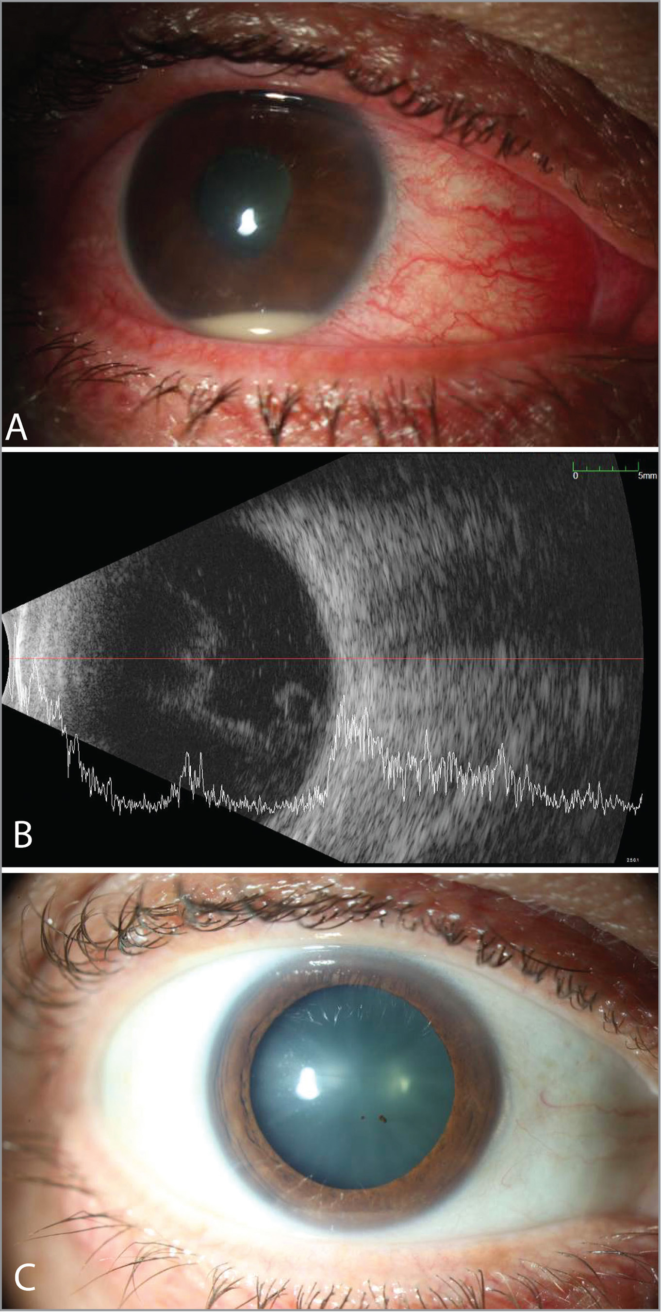 Slit-lamp photograph (A) of Case 2 presenting with diffuse conjunctival injection and a 3-mm layered hypopyon, 4+ cell, and fibrin in the anterior chamber, with B-scan (B) showing vitritis and moderate hyperechoic vitreous opacities 3 days after ranibizumab injection to the right eye. The patient, a 56-year-old phakic, healthy male, had received six prior ranibizumab injections for cystoid macular edema associated with a perfused central retinal vein occlusion in his right eye without adverse events. He was treated empirically with intravitreal vancomycin and ceftazidime, hourly topical difluprednate, a cycloplegic, and oral prednisone. Following an 8-week injection hiatus, he was switched to intravitreal aflibercept, following which he developed a second inflammatory response. Four weeks after similar treatment, the inflammation had resolved (C).