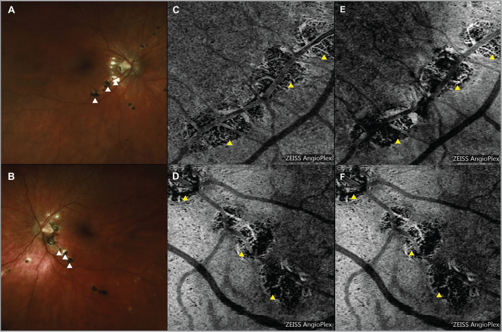 """Color fundus photographs demonstrating peripapillary atrophy and discrete pigmented """"punched out"""" scars (white arrowheads) along the inferotemporal arcades (A, B). Optical coherence tomography angiography at the level of the choriocapillaris (C, D) and deep choroid (E, F) demonstrates sharply demarcated areas of hypoperfusion corresponding to the scars (yellow arrowheads)."""