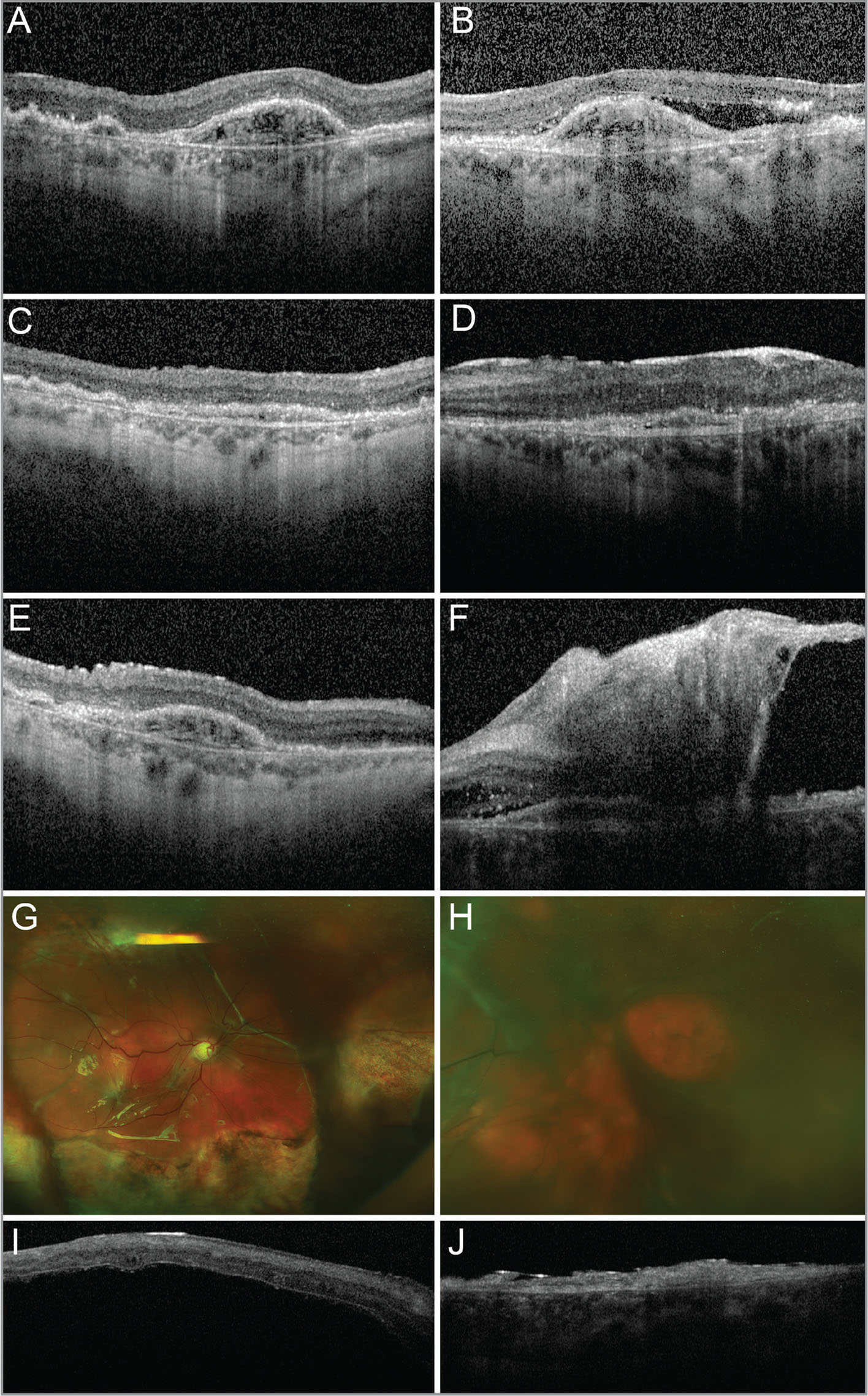 "A 77-year-old woman with a history of bilateral exudative macular degeneration received intravitreal adipose-derived ""stem cell"" injections in both eyes. Her baseline optical coherence tomography (OCT) images are shown 4 months prior to the injections in the right (A) and left (B) eyes. Three weeks after ""stem cell"" injections, the normal retinal contour was blunted by epiretinal membrane (ERM) formation in the right (C) and left (D) eyes. Vitreous hemorrhage and debris were noted bilaterally. Five weeks after ""stem cell"" injections, the ERM in the right eye progressed, resulting in progressive irregularities in the retinal contour (E). The left eye developed a tractional retinal detachment (F). By 7 months after the ""stem cell"" injections, the patient had undergone a retinal detachment repair in the right eye at an outside institution. Fundus photographs show recurrent rhegmatogenous/tractional retinal detachments with proliferative vitreoretinopathy in the right (G) and left (H) eyes. The view in the left eye is limited by a brunescent cataract. OCT imaging showed detachment of the right macula with a thin, hyperreflective overlying membrane (I). OCT imaging of the left eye showed thinned and atrophic retina with a thin, hyperreflective overlying membrane (J). The initial vision was 20/200 in the right eye and 20/400 in the left eye. Visual acuity 7 months after the ""stem cell"" injections was hand motions in the right eye and light perception in the left eye."