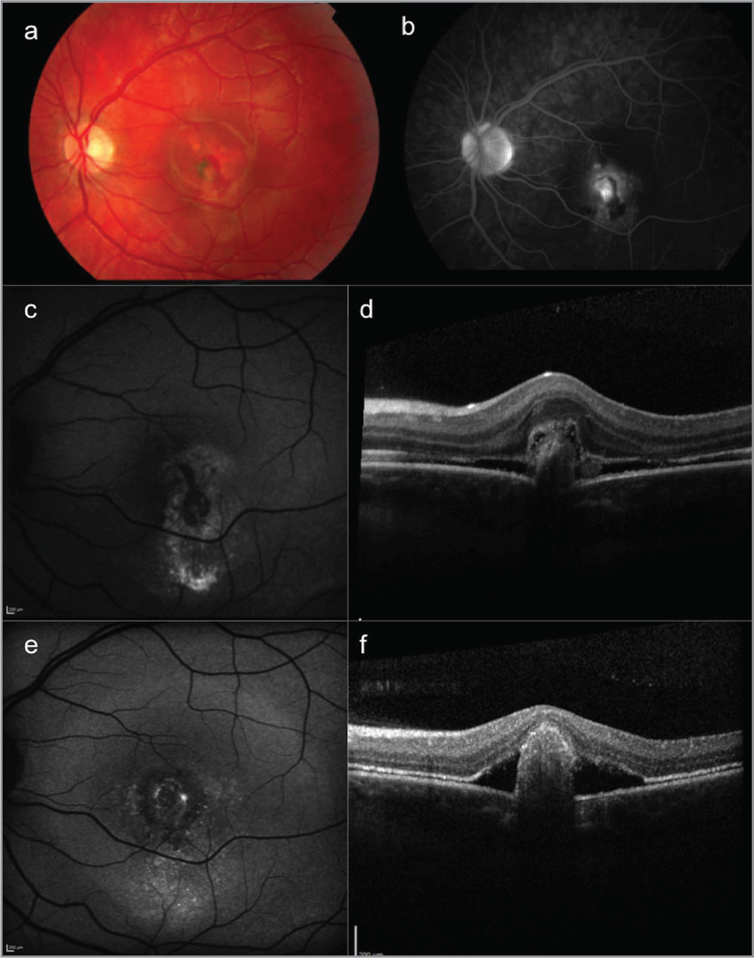 Case 2. Multimodal retinal imaging of autosomal recessive bestrophinopathy of the left eye at presentation (a–d) and after 6 years of follow-up (e, f). (a) Color fundus photograph shows macular pigment abnormalities and retinal hemorrhage. (b) Fluorescein angiography shows leakage of the fluorescein. (c) Fundus autofluorescence (FAF)imaging shows blockage of the background autofluorescence by the retinal hemorrhage surrounded by speckled hyperautofluorescent changes; (d) Spectral-domain optical coherence tomography (SD-OCT) shows ill-defined subretinal hyperreflectivity; (e) FAF after 6 years of follow-up; (f) SD-OCT shows consolidation of the subretinal hyperreflectivity.