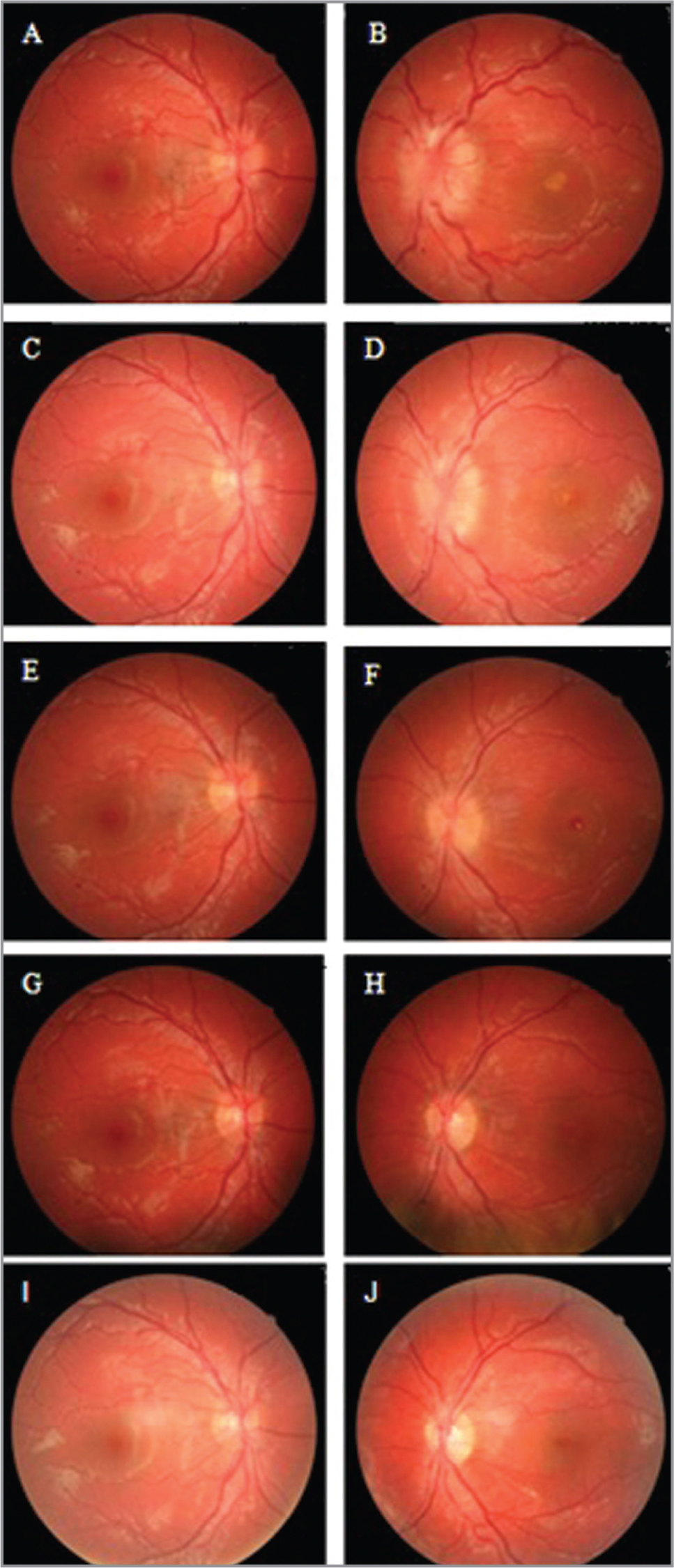 (A–J) Fundus photographs. At presentation (A, B): Papilledema predominantly in the left eye (OS) with a yellow foveal spot OS compatible with macular ischemia. At seventh day of treatment (C, D): Reduction of the papilledema in both eyes and diminution of macular ischemia and appearance of macular folds and macular hole (MH) OS. At the third week of evolution (F): Subtle disc edema and full-thickness MH (FTMH) OS. After macular surgery (H): Complete anatomic closure of FTMH OS. At twelfth month after macular surgery (J): Stability in anatomy of macula OS.