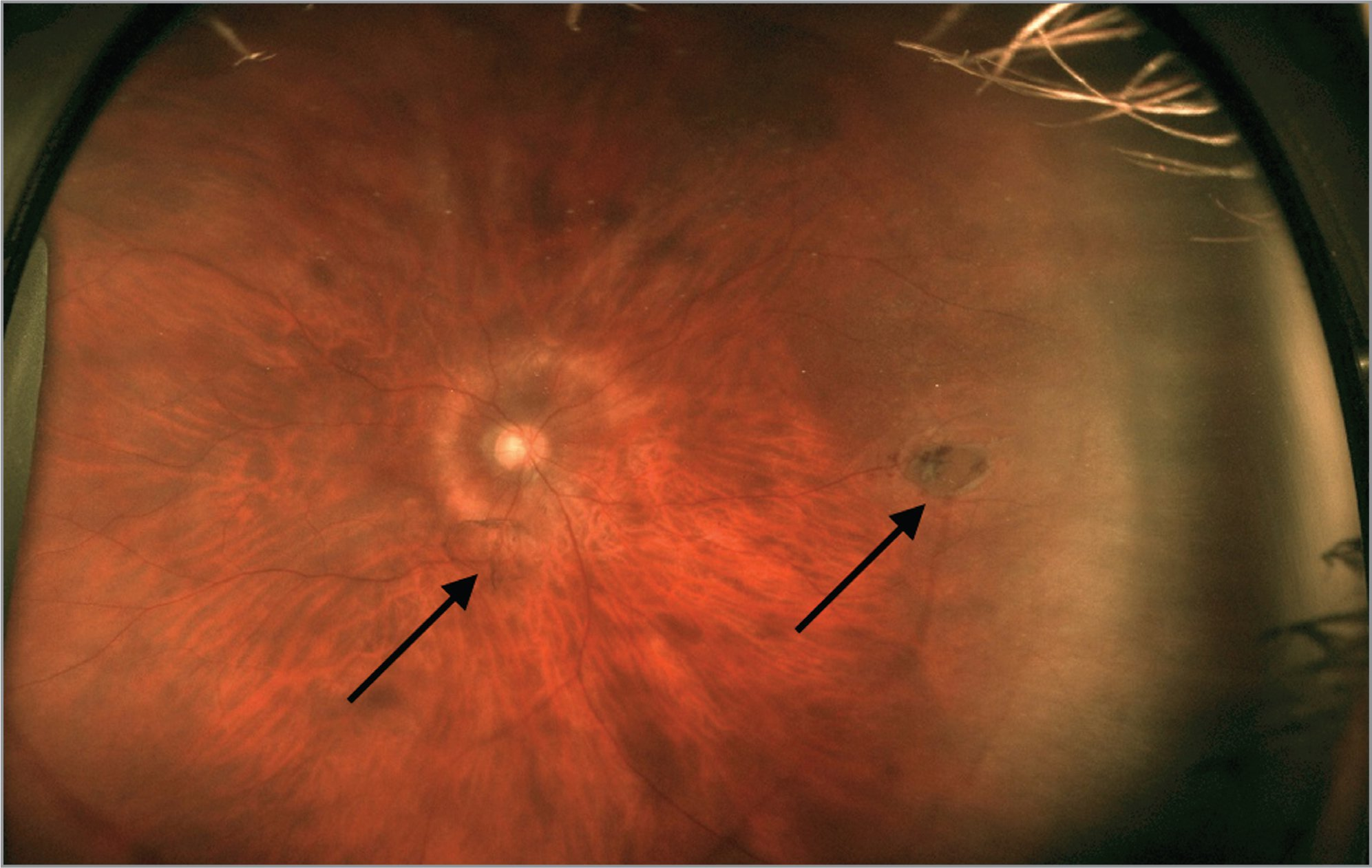 Optos fundus photo of the right eye demonstrating a Weiss ring (left arrow) and a large horseshoe tear at the 3-o'clock position (right arrow).