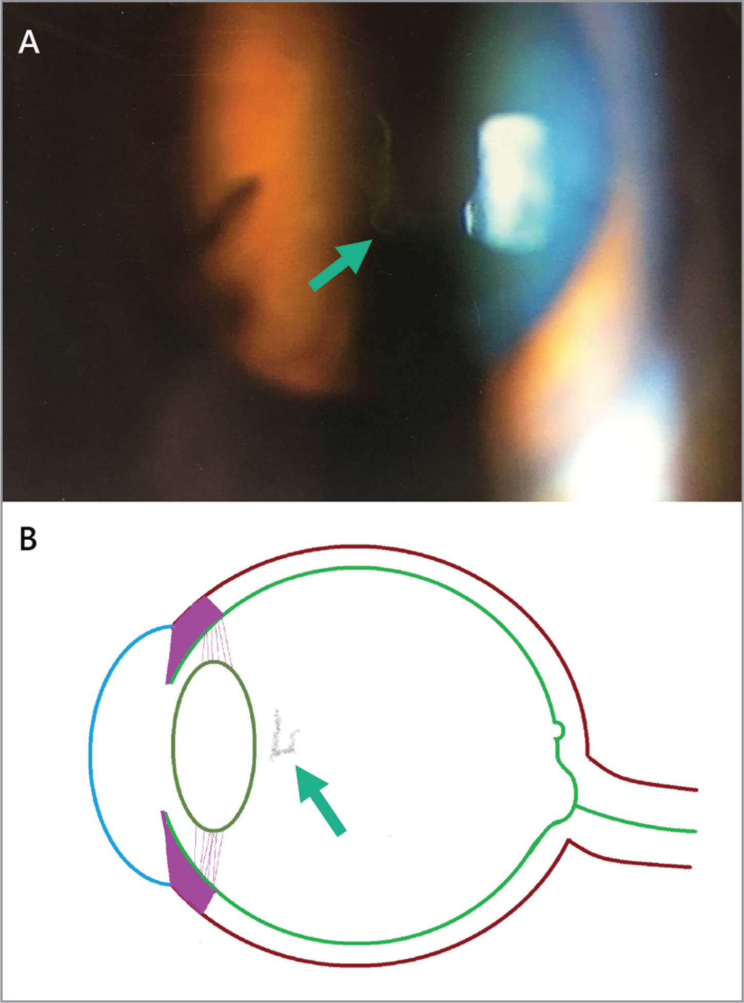 External photography in the right eye before YAG laser vitreolysis. (A) Opacities in the anterior vitreous (arrow). (B) Schematic drawing of anterior vitreous opacities (arrow) according to records from the referring doctor.