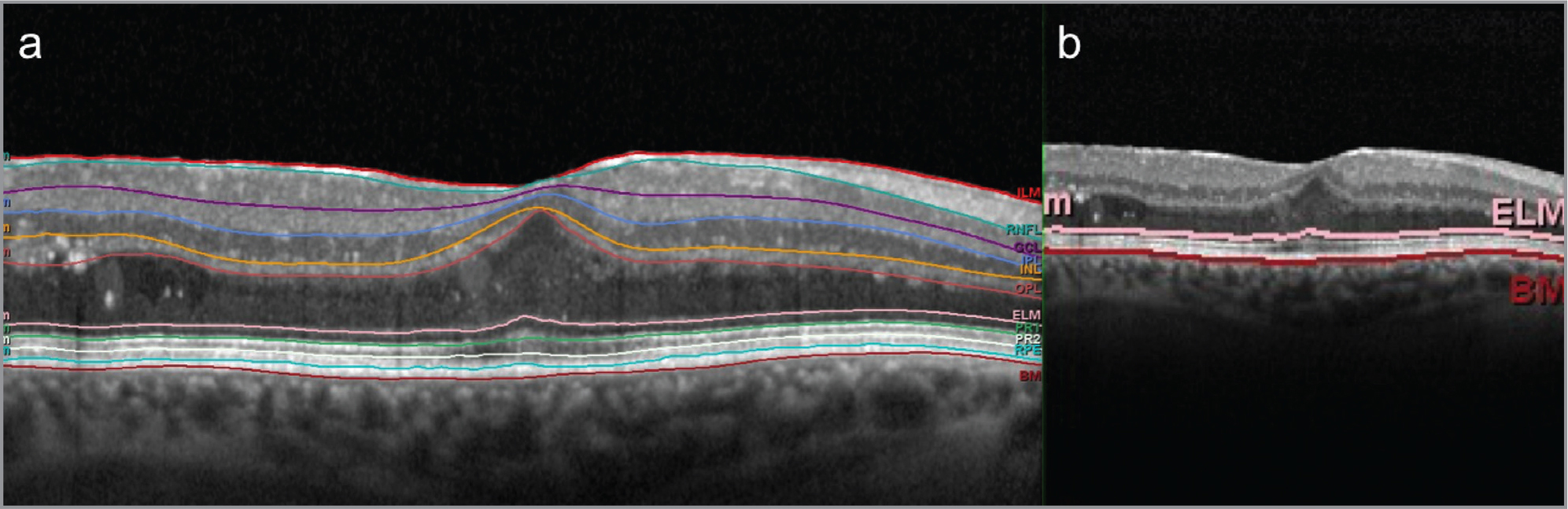 (A) OCT scan showing the automatic segmentation provided by the device's software: nerve fiber layer (ILM-RNFL), ganglion cell layer (RNFL-GCL), inner plexiform layer (GCL-IPL); inner nuclear layer (IPL-INL); outer plexiform layer (INL-OPL); Henle's fiber layer plus outer nuclear layer (OPL-ELM); outer retinal layers (ELM-BM, including external limiting membrane plus myoid zone of the photoreceptors plus ellipsoid zone of the photoreceptors plus outer segments of the photoreceptors plus cone interdigitation with RPE and RPE / Bruch's membrane complex). (B) The same OCT scan considering only the outer retinal layers as automatically provided by the device. OCT = optical coherence tomography; ILM = internal limiting membrane; RNFL = retinal nerve fiber layer; GCL = ganglion cell layer; IPL = inner plexiform layer; INL = inner nuclear layer; OPL = outer plexiform layer; ONL = outer nuclear layer; ELM = external limiting membrane; PR1/PR2 = photoreceptors layers; RPE = retinal pigment epithelium; BM = Bruch's membrane.