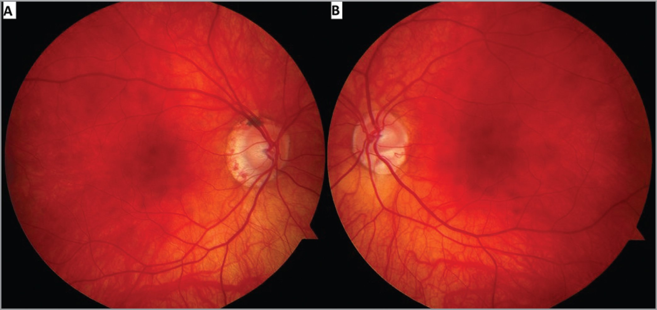Dilated fundus exam revealed normal-appearing vitreous and vessels of both eyes. The optic nerve in the left eye was tilted inferiorly and there was a large scleral crescent in both eyes. The macula had a normal appearance in both eyes.
