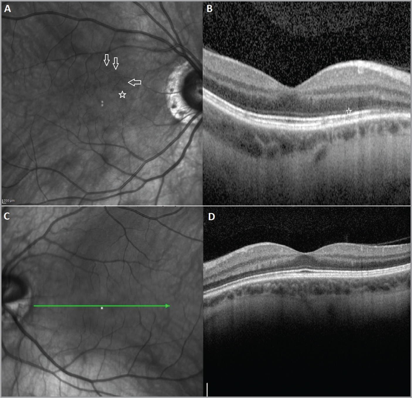Infrared radiance (IR) and optical coherence tomography (OCT) images on initial presentation. IR in the right eye revealed multiple focal patches of oval-shaped decreased reflectance scattered circumferentially in the paramacular region (A). These lesions were more numerous in the superior macula (arrows). The OCT (B) showed normal foveal contour and inner retinal layers. There were multiple 50 μm to 100 μm focal areas of disruption of the outer segment / retinal pigment epithelium (OS/RPE) interface with overlying inner segment / outer segment (IS/OS) junction attenuation. The focal areas of OS/RPE interface disruption corresponded to the areas of reduced reflectance in the IR image (star). The IR (C) and OCT of the left eye were normal (D).